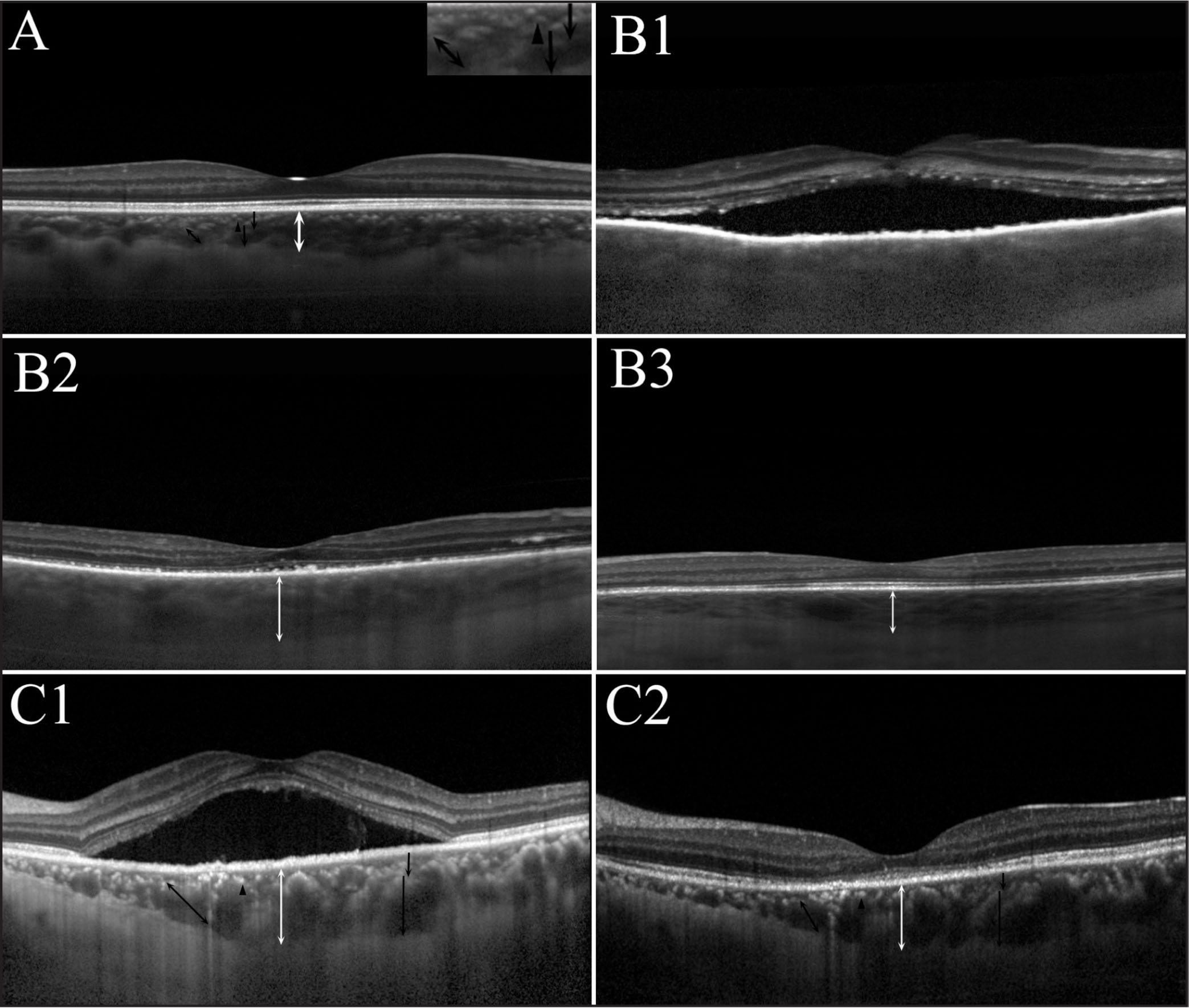 Examples of enhanced depth imaging spectral-domain optical coherence tomography choroidal images for each study group. Black double-headed arrows indicate the diameter of vessels in Haller's layer; black arrowheads identify vessels in Sattler's layer; long black arrows indicate the thickness of Haller's layer; short black arrows indicate the thickness of Sattler's layer. (Top left) The boundary of the choroid and the outline of choroidal vessels were clearly delineated in control participants. (Top right) In acute-stage Vogt-Koyanagi-Harada (VKH) patients, the choroid lost its normal anatomical structure. (Middle left) Following 2 weeks of corticosteroid treatment for acute-stage VKH patients, the exudative retinal detachment was relieved, the choroid was thinner, and the outline of the vessels was more distinct. (Middle right) Patients with convalescent VKH presented with thinner choroids and fewer hyperreflective profiles with hyporeflective cores than did acute-stage VKH patients. (Bottom left, bottom right) Central serous chorioretinopathy patients' choroids were thinner after treatment, but the anatomical structure of the choroids exhibited little change.