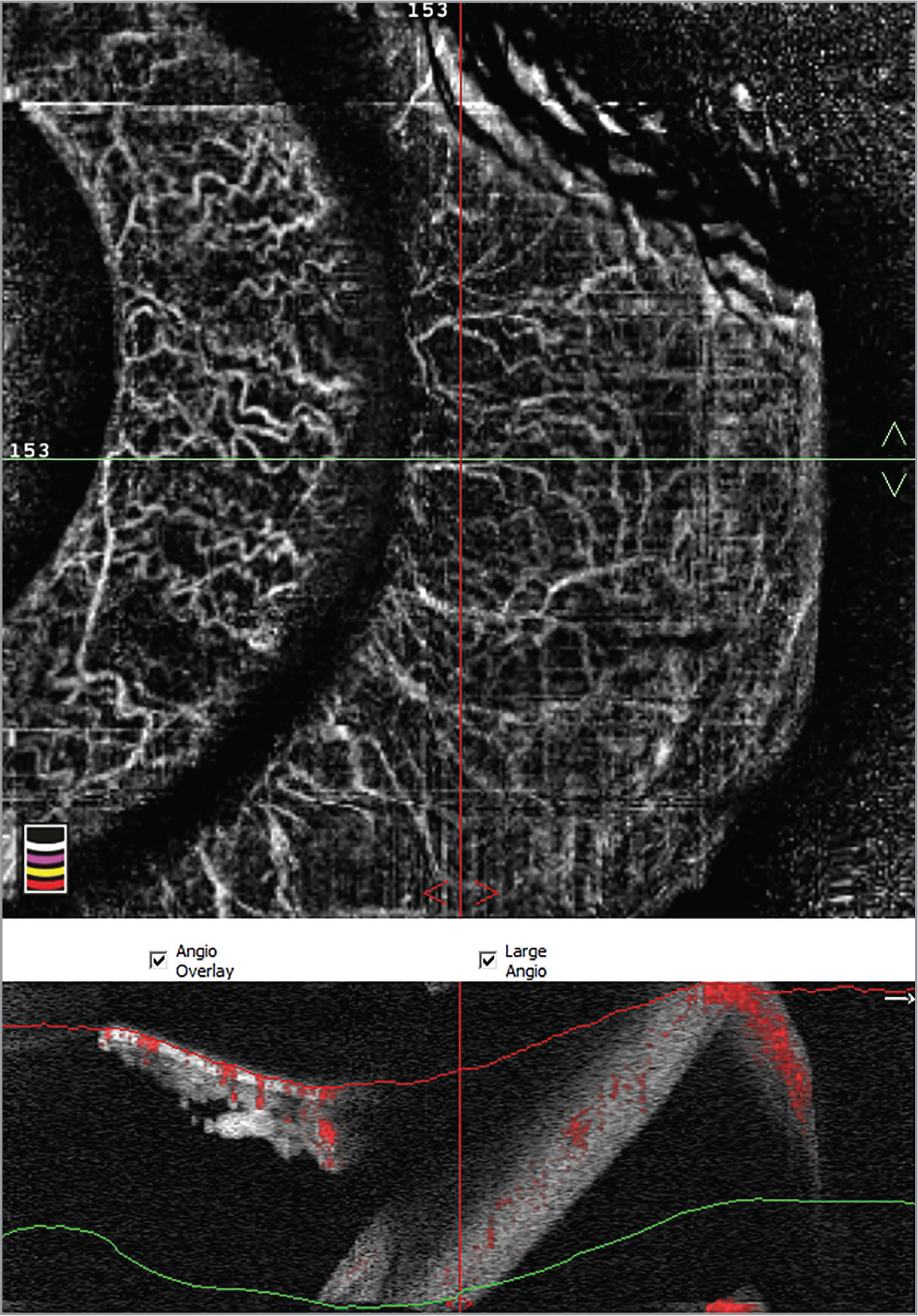 Optical Coherence Tomography Angiography In A Normal Iris