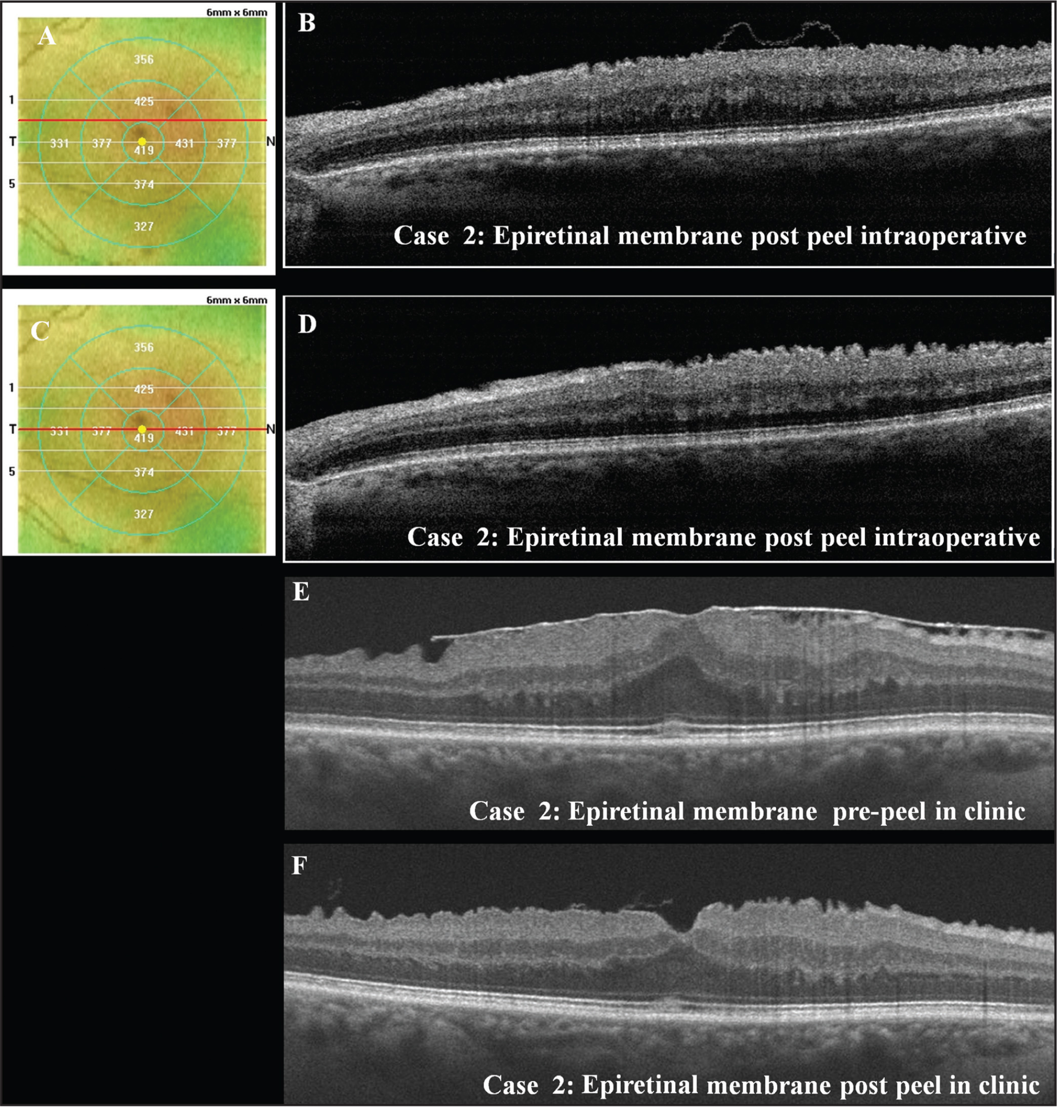 Case 2: Epiretinal membrane. (A) Intraoperative optical coherence tomography (iOCT) macular thickness map. Red line indicates the retinal location of the (B) iOCT high-definition raster scan. Note the residual inner retinal band of tissue. (C) iOCT macular thickness map. Red line indicates the retinal location of the (B) iOCT high-definition raster scan. Note the inner retinal changes. (E) Outpatient OCT taken before surgery. (F) Outpatient OCT taken postoperatively.