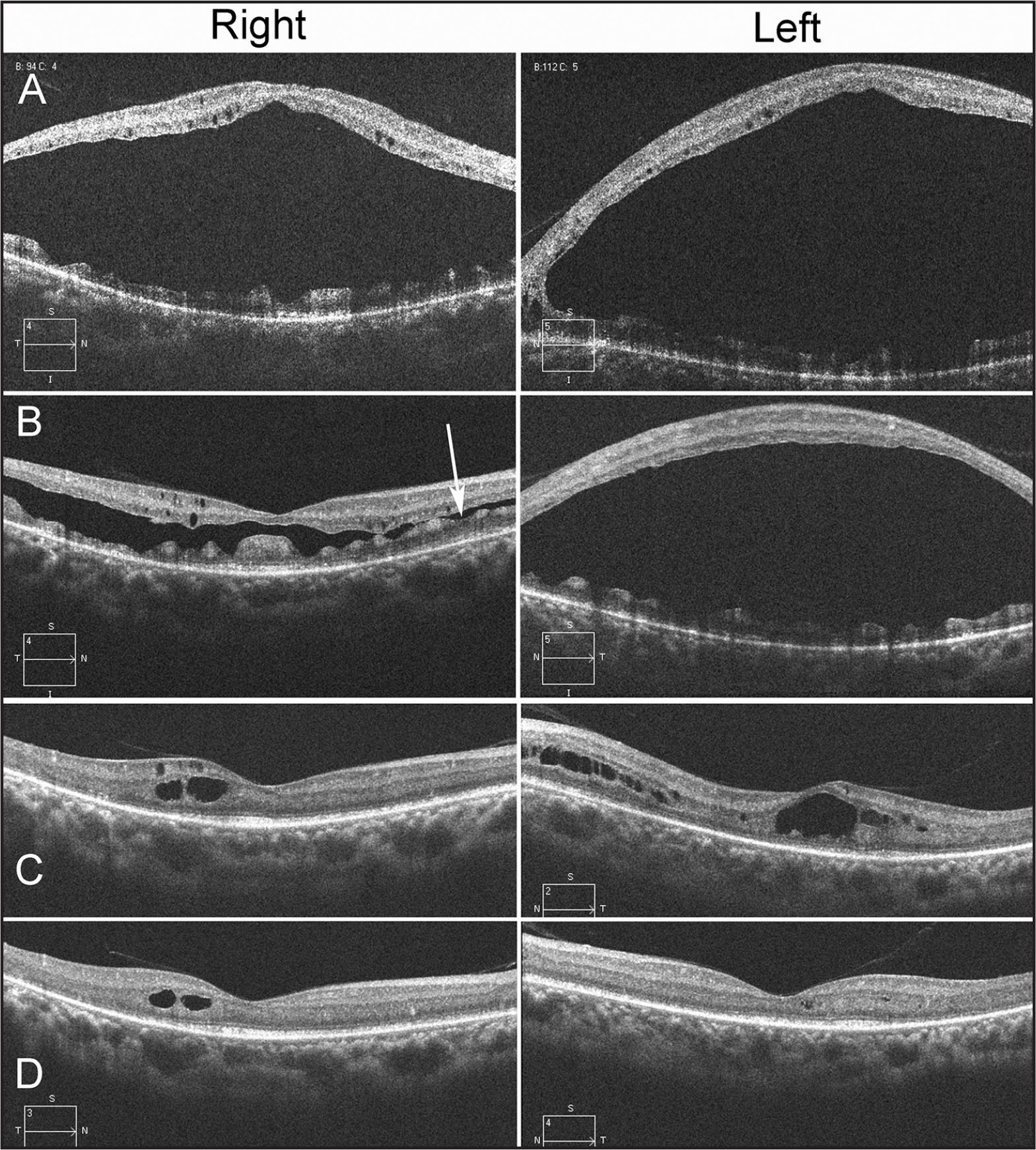 Horizontal scan images (6 mm) of spectral-domain optical coherence tomography. Large macular retinoschisis is seen in both eyes of a 28-year-old patient (A). Dramatic improvement of the large macular retinoschisis is seen in the right eye, and slight improvement is seen in the left eye at the age of 29 (B). Splitting of the right retina (arrow) only seemed to occur in the outer plexiform layer (B). At the age of 32, only small cystoid changes are seen in both eyes (C), with the large macular retinoschisis completely resolved by the age of 34 (D). In addition to the visible external limiting membrane, the ellipsoid zone is partially observed in both eyes (D).