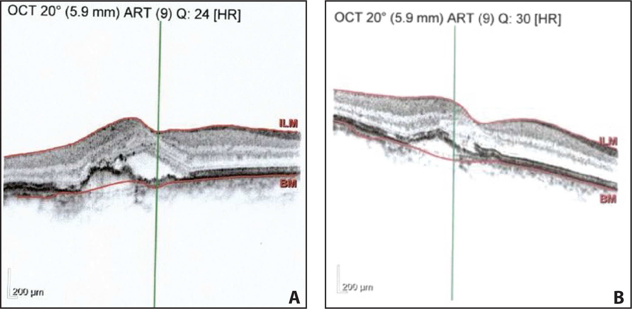 Optical coherence tomography resolution of subretinal fluid in patient C before (A) and after (B) treatment with aflibercept.