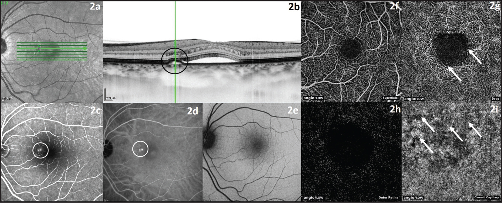 Left eye of a 39-year-old female patient with acute central serous chorioretinopathy. (A, B) Infrared and optical coherence tomography (OCT) image showing retinal detachment and detachment of retinal pigment epithelium. (C) Fluorescein angiography image with leakage point (white circle). (D) Indocyanine green angiography image with leakage point (white circle). (E) Fundus autofluorescence image. (F) OCT angiography (OCTA) image of superficial retinal vessels. (G) OCTA image of deep retinal vessels with rarefication of vessels and discernable area with detached retina (white arrows). (H) OCTA image of outer retina. (I) OCTA image of choroid capillaries with abnormal flow pattern (white arrows).