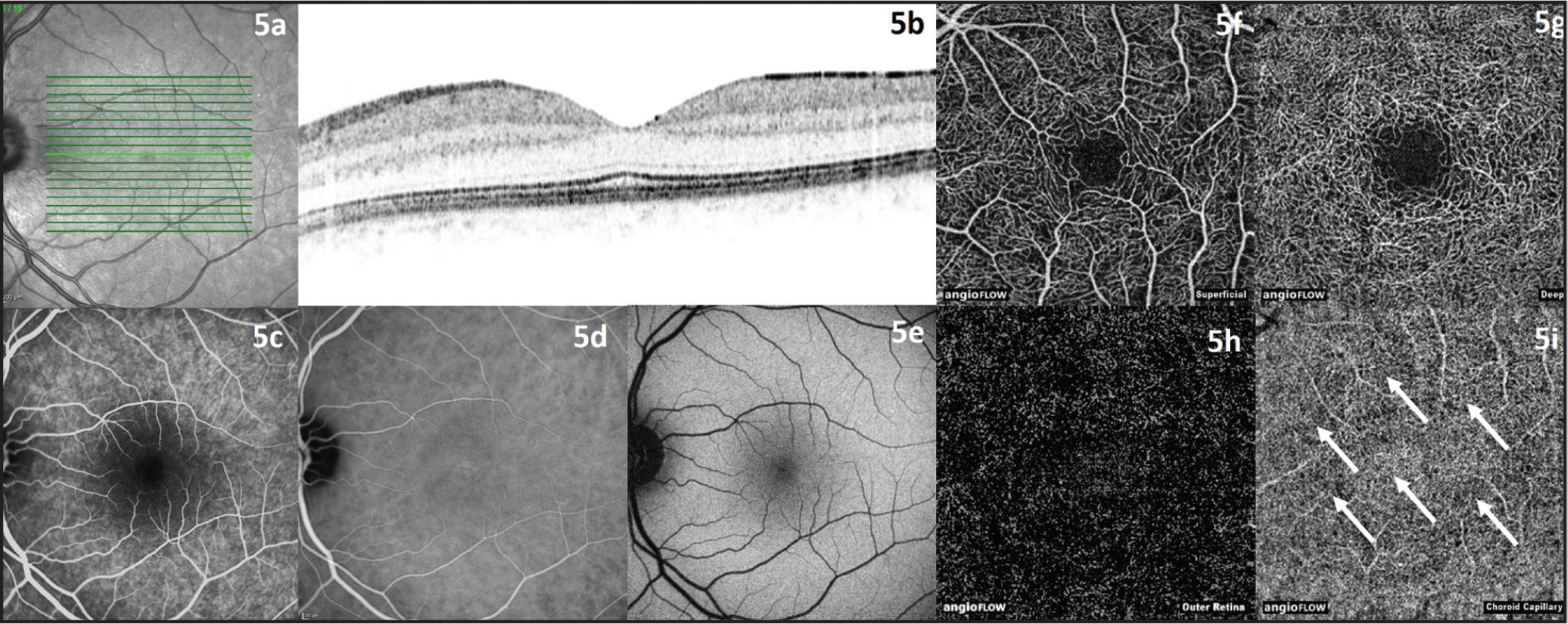 Left healthy eye of the same 29-year-old male patient as in Figure 4. (A, B) Infrared and optical coherence tomography (OCT) image. (C) Fluorescein angiography image. (D) Indocyanine green angiography image. (E) Fundus autofluorescence image. (F) OCT angiography (OCTA) image of superficial retinal vessels. (G) OCTA image of deep retinal vessels. (H) OCTA image of outer retina. (I) OCTA image of choroid capillaries with regular flow pattern (white arrows).