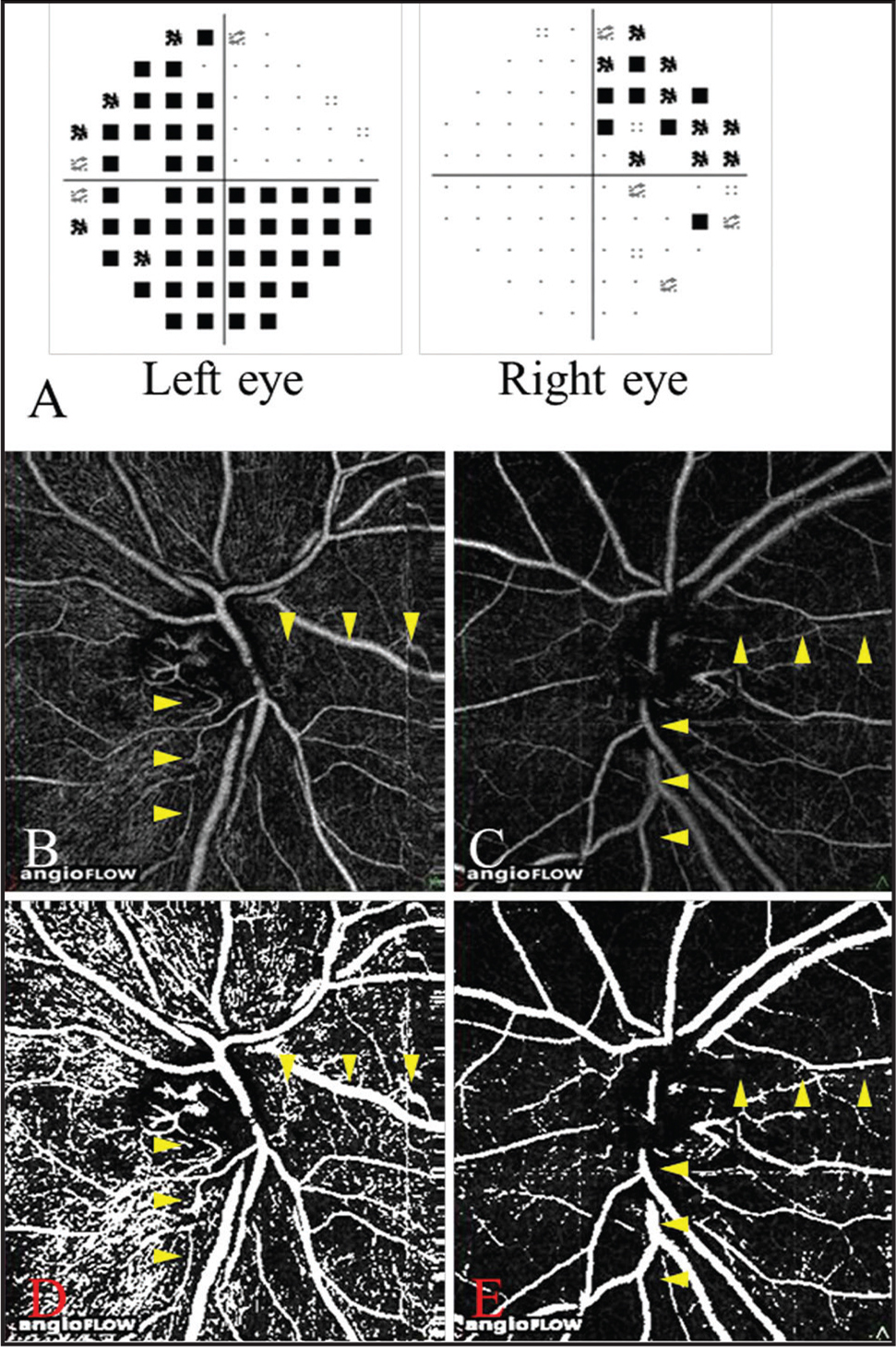 Visual field (VF) findings and optical coherence tomography (OCT) angiograms in Case 4. A 49-year-old male patient with pituitary adenoma. He underwent tumor resection 6 months prior to this study. Pattern deviation using the Humphrey Field Analyzer (A). The VF testing showed an upper temporal VF defect in the right eye and a temporal and lower nasal VF defect in the left eye. OCT angiograms of the disc of the right eye (B) and of the left eye (C). The retinal perfusion was decreased in the retina (arrowhead) in both eyes. Binarized OCT angiograms of the disc of the right eye (D) and of the left eye (E). The retinal perfusion was decreased in the retina (arrowhead) corresponding to the quadrants of the VF defects in both eyes.