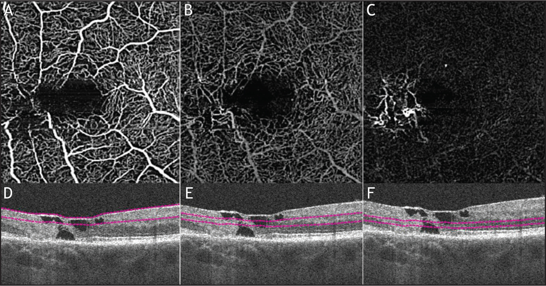 En face flow optical coherence tomography angiography (OCTA) (A–C) using a modified spectral-domain Cirrus OCT (Angioplex; Carl Zeiss Meditec, Dublin, CA) of the superficial, deeper plexus, and avascular retina layers, with respective B-scans (D–F) of the same eye showed on Figure 5. On the B-scans, it is possible to see intraretinal cavities and outer retina loss, characteristic of macular telangiectasia type 2. (A) Superficial en face flow OCTA image showing the presence of microvascular abnormalities in the juxtafoveal region. (B) Deeper plexus en face flow OCTA image showing the telangiectatic and dilated vessels in the middle retinal layers. (C) Avascular retina en face flow OCTA image detecting with details the anastomotic telangiectatic dilated vessels. (D–F) representative B-scans showing the boundaries (red lines) of the slabs that created the en face flow image showed in A–C.