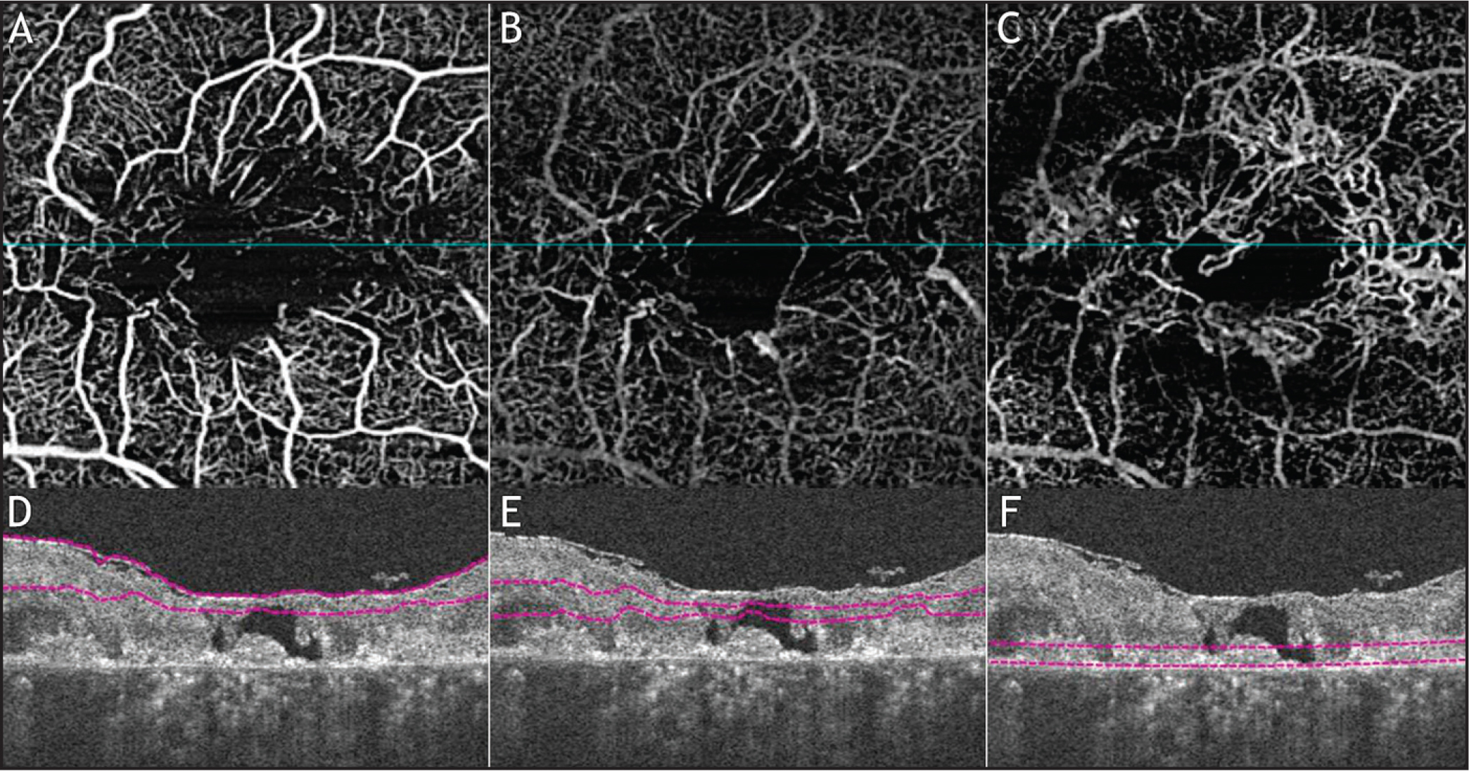 En face flow optical coherence tomography angiography (OCTA) (A–C) of the right eye of a 57-year-old woman with late, proliferative macular telangiectasia type 2 using a modified spectral-domain Cirrus OCT (Angioplex; Carl Zeiss Meditec, Dublin, CA) of the total retina color-coded, superficial, deeper plexus, and outer retina layers, with respective B- scans (D–F). On the B-scans it is possible to see intraretinal cavities and outer retina loss, characteristic of macular telangiectasia type 2. (A) Superficial en face flow OCTA image showing the presence of microvascular abnormalities in the juxtafoveal region. (B) Deeper plexus en face flow OCTA image showing the telangiectatic and dilated vessels in the middle retinal layers. (C) Outer retina en face flow OCTA image detecting a neovascular network that is not apparent on the structure B-scan. (D–F) Representative B-scans showing the boundaries (red lines) of the slabs that created the en face flow image showed on A–C.