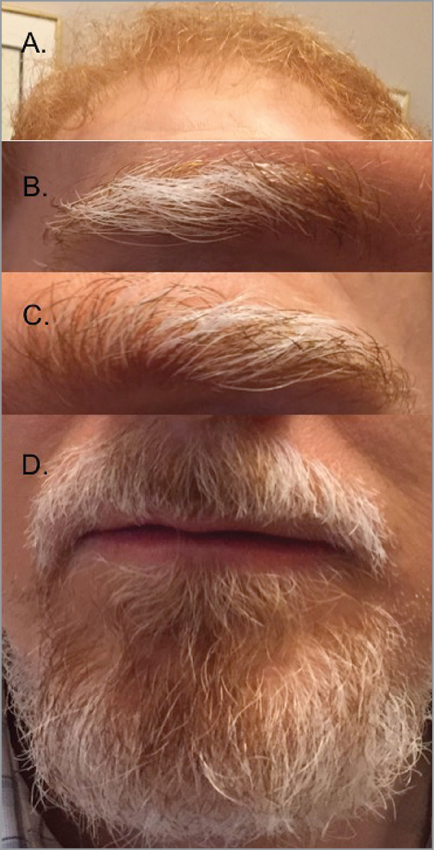 Patient with poliosis from ipilimumab-induced Vogt-Koyanagi-Harada. (A) Forehead demonstrating his natural red hair that was unaffected during medication use. Poliosis was found on his right (B) and left (C) eyebrows and his goatee (D).