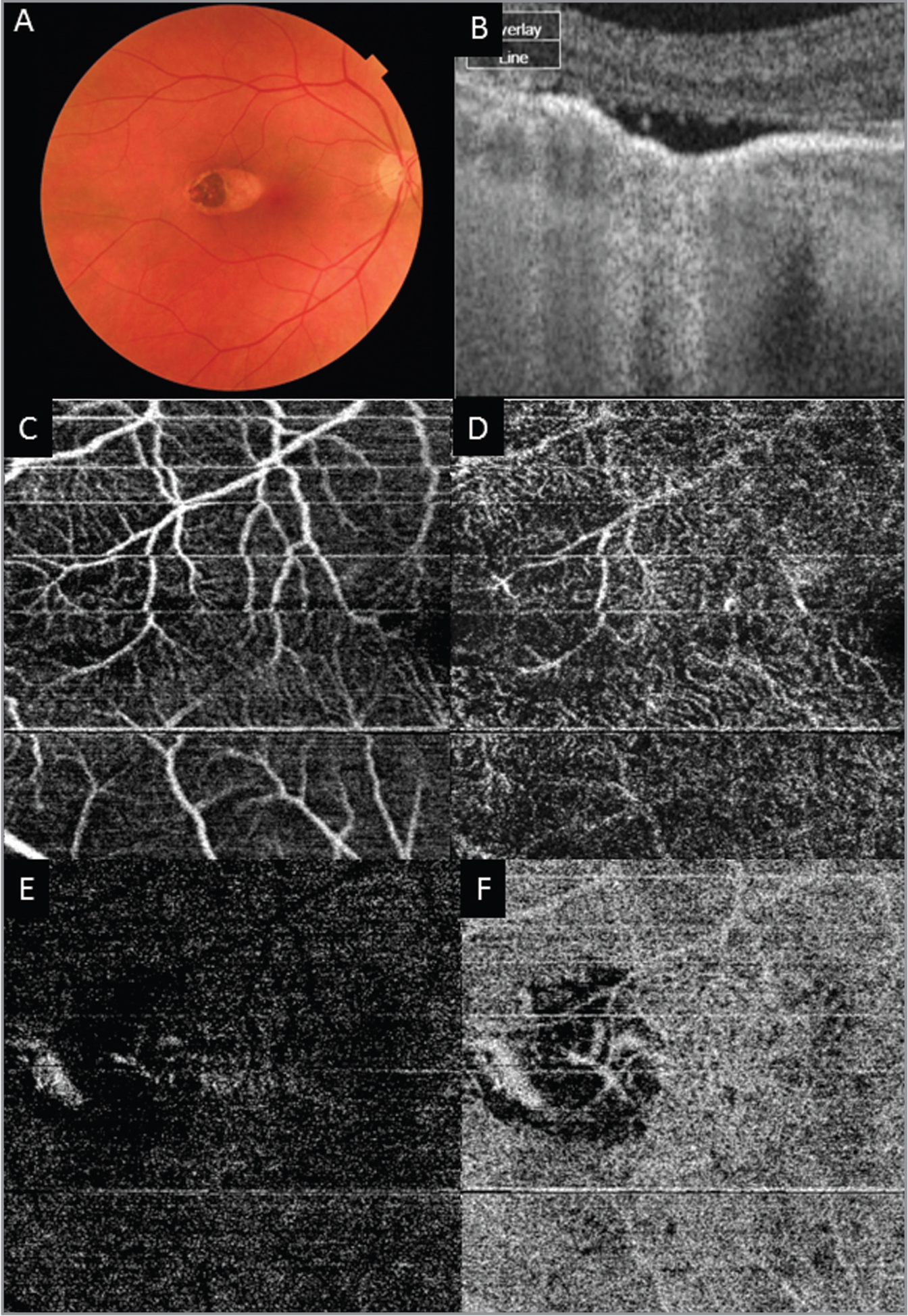 Imaging of torpedo lesion from Case 1. (A) Color fundus photo demonstrating typical appearance and location of torpedo lesion. (B) Optical coherence tomography (OCT) of torpedo lesion that shows outer retinal cavitation. (C) OCT angiography (OCTA) segment; superficial plexus of inner retina showing fine vessel loss at the site of the lesion. (D) OCTA segment; deep plexus of inner retina showing fine vessel loss at the site of the lesion. (E) OCTA segment; outer retina demonstrating visibility of the larger choroidal vessels at lesion site. (F) OCTA segment; choriocapillaris demonstrating visibility of the larger choroidal vessels at lesion site.
