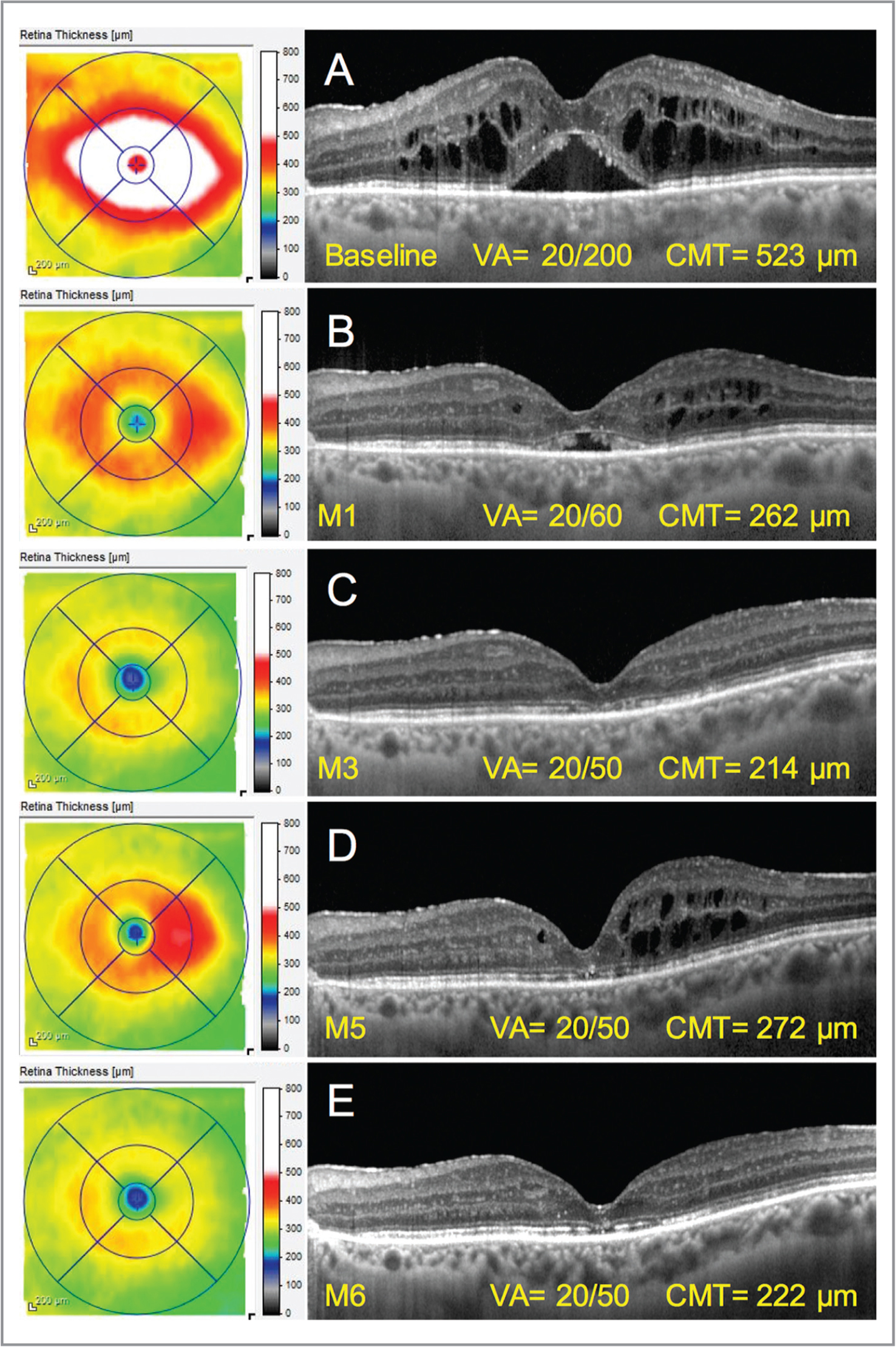 Progressive resolution of macular edema due to Irvine-Gass syndrome and visual improvement in a 76-year-old woman treated by oral eplerenone and topical dexamethasone drops 2 years after complicated cataract extraction, intraocular lens dislocation, and pars plana vitrectomy. (A) At presentation. (B) Anatomical and visual improvement were observed 1 month after initiating oral eplerenone 25 mg and topical dexamethasone drops (4 times daily). (C) Further anatomical and visual improvement were noted 3 months after treatment initiation with dexamethasone dose tapering (three times daily). (D) One month after progressive dose reduction of dexamethasone reached one drop per day, a recurrence of macular edema was observed. (E) Re-improvement was visible 1 month after increasing dexamethasone drops again at four times daily while continuing oral eplerenone. M = month; VA = visual acuity; CMT = central macular thickness.