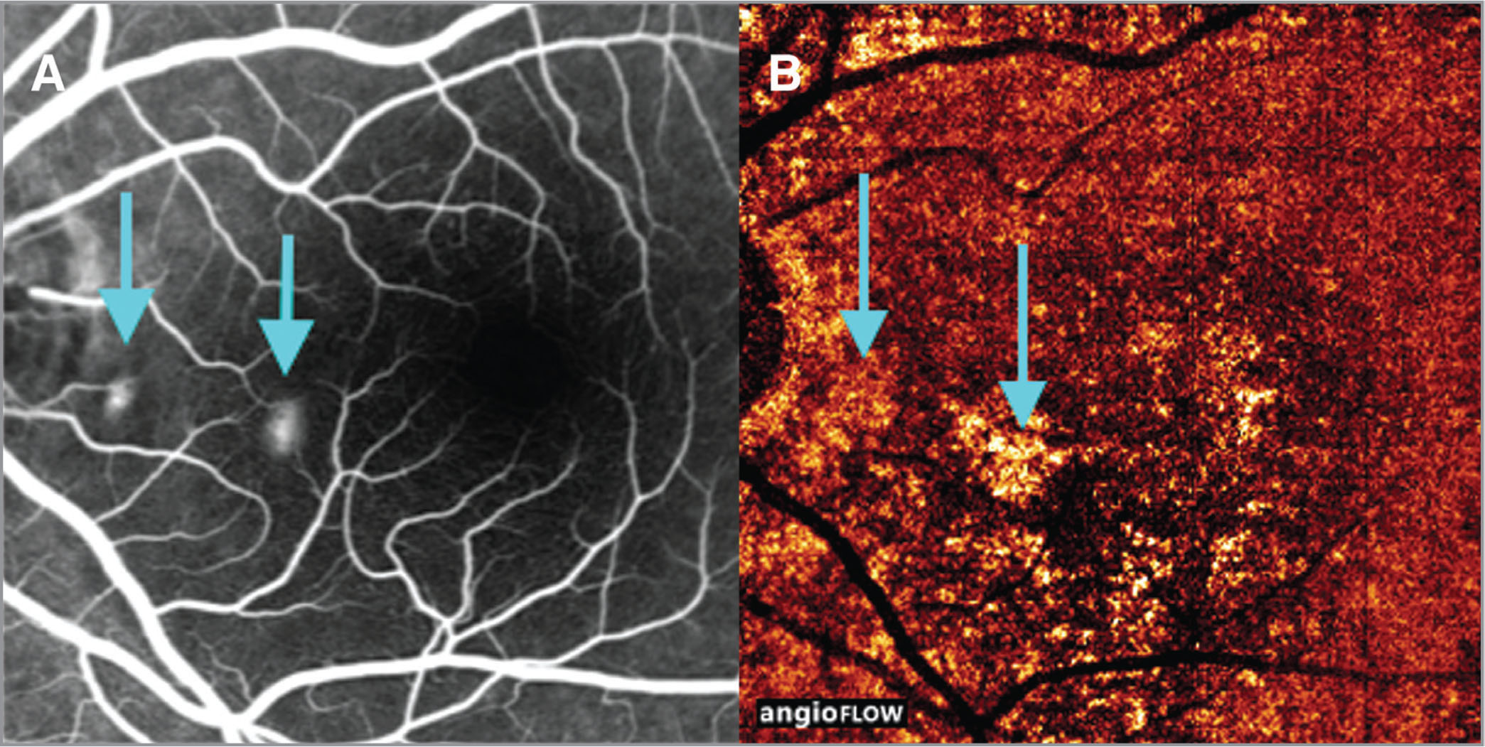 The images of patient No. 14, a 33-year-old woman diagnosed with acute central serous chorioretinopathy. (A) Two hyperfluorescent leaking points in late phase of fluorescein angiography (FA). (B) The corresponding optical coherence tomography angiography image where the hyperreflective signals shown by the arrows match the positions of leaking points on FA.