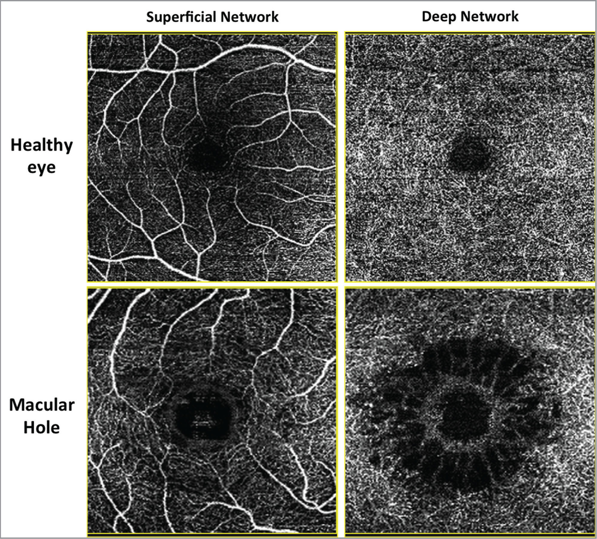 Optical coherence tomography angiography of a healthy eye and an eye with macular hole. The retinal vascular differences between the healthy and pathologic eye correspond mainly to the deep network of vessels. Small, circular, hyporeflective spaces are present surrounding the macular hole in the inner nuclear layer, whereas elongated radial hyporeflective cavities forming a stellar pattern are observed in the outer plexiform/Henle fiber layers complex.