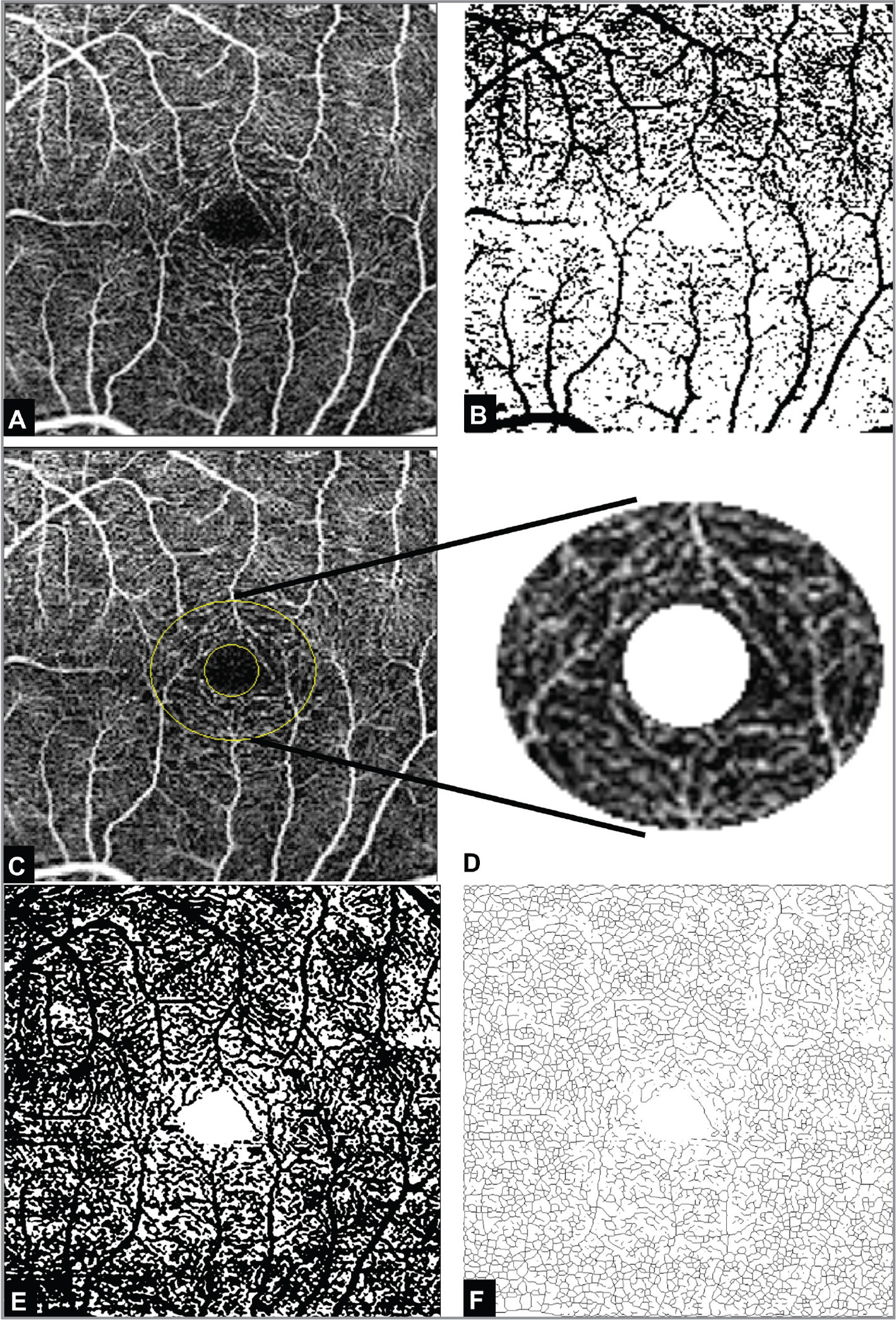 Standardized vessel density measurement. (A) The original angiography en face slab. (B) Binarized image before threshold adjustment. (C) The selected 1-mm diameter area after excluding the foveal avascular zone area. The mean value of the vessels in (D) was chosen as the threshold to binarize the image. (E) Demonstrating the binarized image after setting the standardized threshold. Note the change in vessel width compared to the original image. (F) The skeletonized image based on the standardized threshold image.