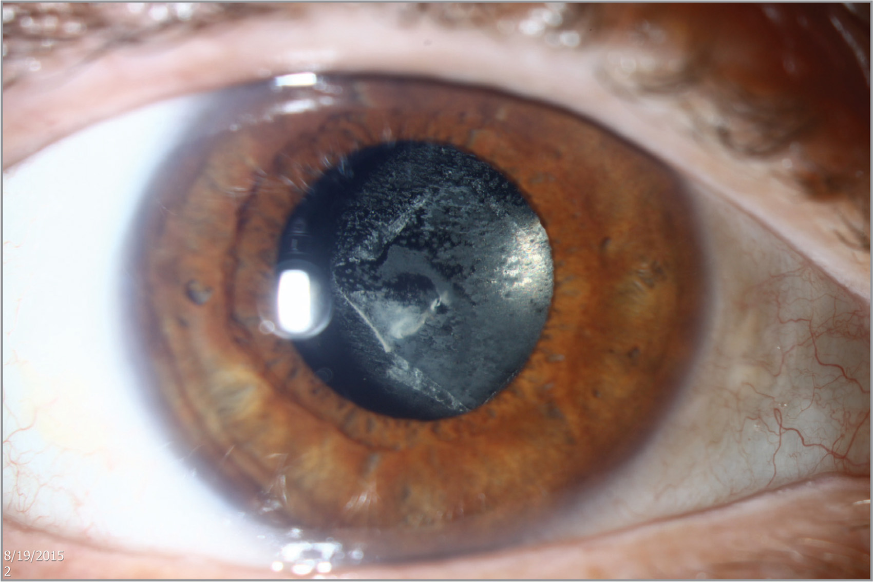 Slit-lamp photograph of the right eye showing accumulation of granular deposits on the posterior surface of the intraocular lens at the preoperative visit.