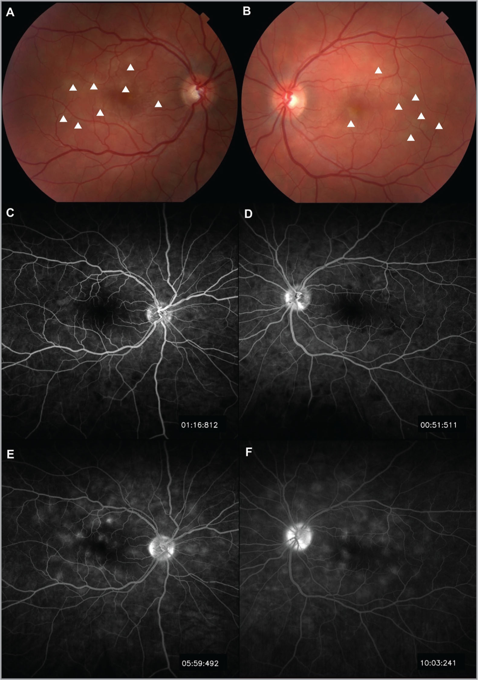 Color fundus photographs showing multiple round, creamy plaques (white arrowheads) concentrated mostly in the posterior pole in both eyes (A, B). Fluorescein angiography shows early blockage and late staining of these lesions (C–F).
