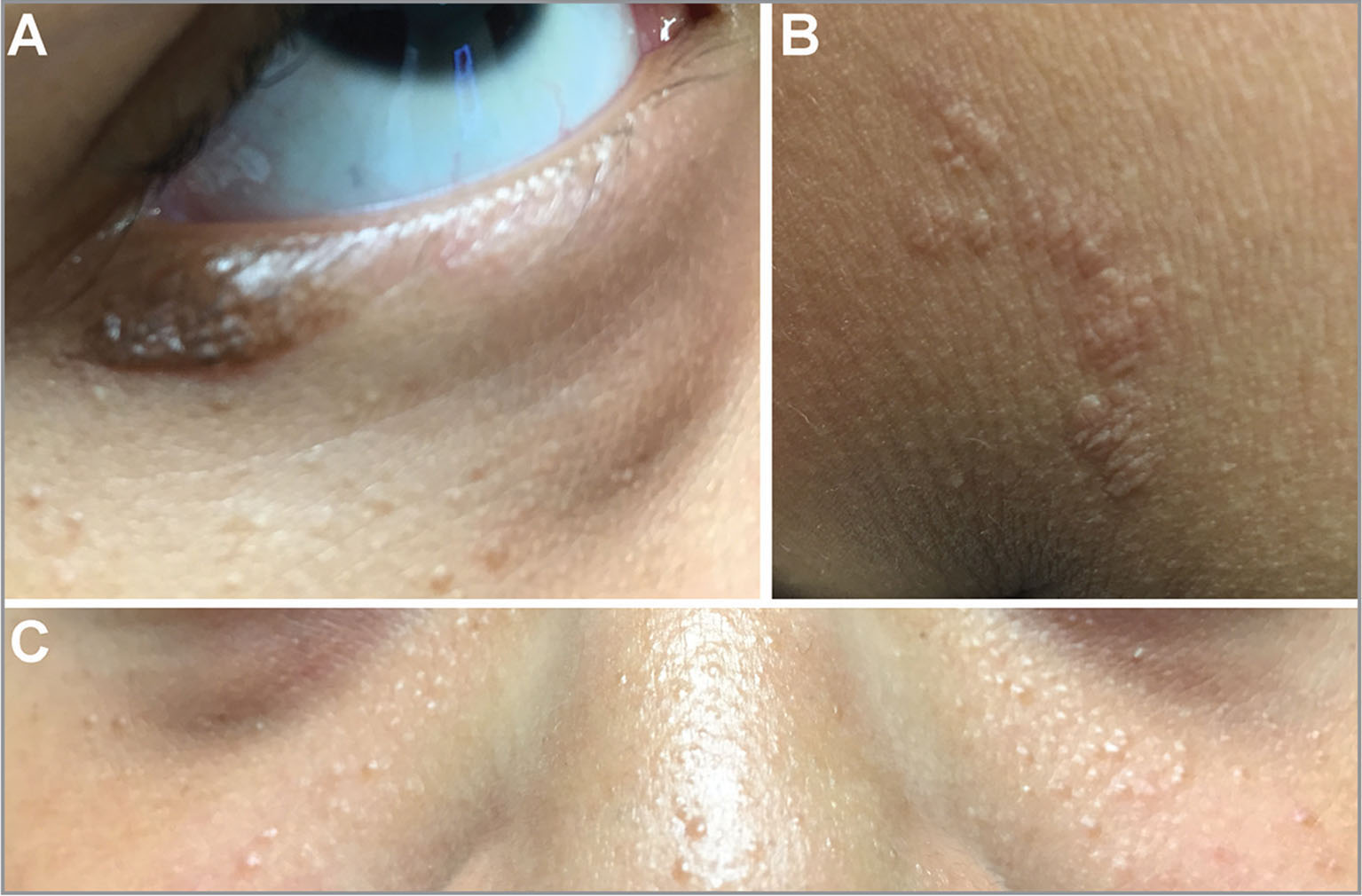 Cutaneous findings consistent with tuberous sclerosis complex. (A) Subtle pigmented lesion along the right lower lid consistent with shagreen patch. (B) Subtle pigmented lesion on right upper chest consistent with shagreen patch. (C) Subtle, acne-like skin lesions on cheeks and nose consistent with adenoma sebaceum.