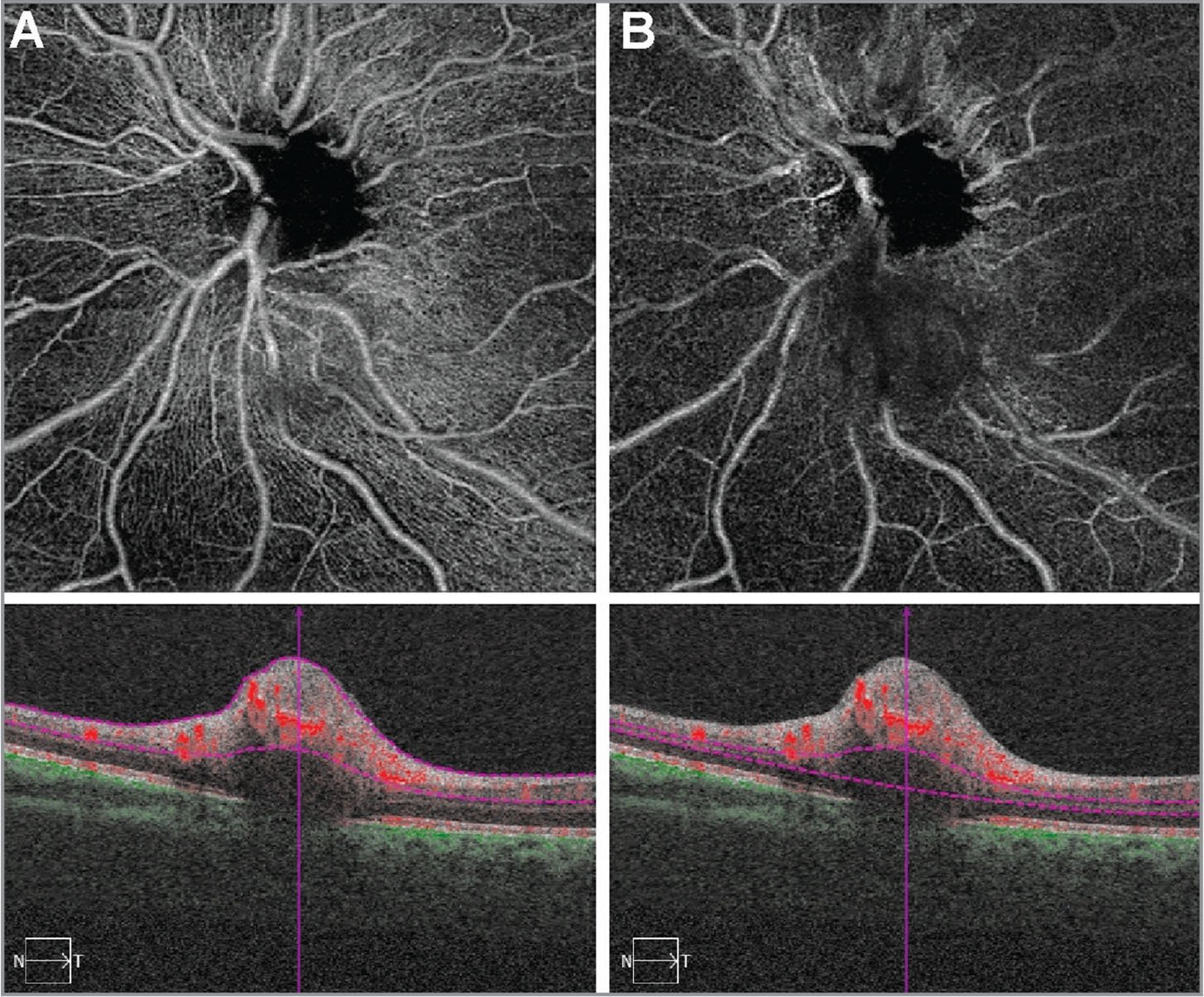 Optical coherence tomography angiography, left eye. In the superficial slab (A) and the deep slab (B), the retinal lesion inferior to the optic disc shows intrinsic vascularity but no feeder vessel.