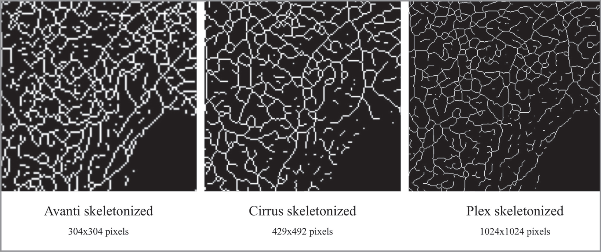 Pixel size variation in skeletonized images of the Avanti, Cirrus, and Plex optical coherence tomography angiography devices. With a universal decrease of vessel width to one pixel, the difference in area occupied by one pixel decreases from the Avanti to the Cirrus to the Plex device as the resolution, respectively, increases. Please note, these are not enlargements of the original images but of the skeletonized images, and hence the pixelated appearance.