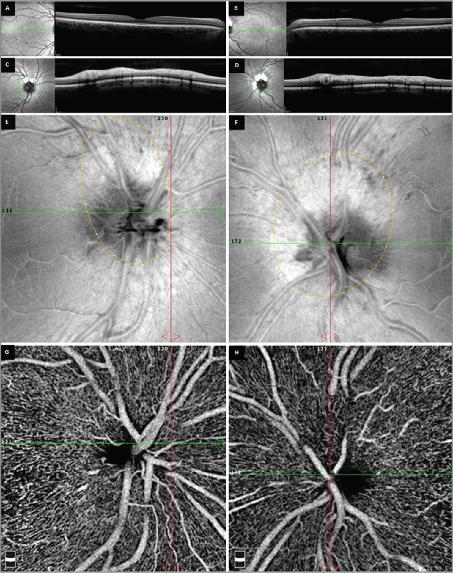 Bilateral cross-sectional spectral-domain optical coherence tomography (OCT) images of the macula are within normal limits in each eye (A, B). Cross-sectional OCT images through the nerve fiber layer around the disc illustrate a remarkably thickened nerve fiber layer corresponding to the myelination in each eye (C, D). En face structural OCT with segmentation at the level of the nerve head (upper and lower internal limiting membrane offset of 9 μm and 150 μm, respectively) illustrate areas of hyperreflectivity co-localizing with the optic disc myelination at the superior disc margin in each eye (E, F). En face OCT angiography through the myelinated nerve fibers illustrates a normal radial peripapillary plexus in each eye without any abnormality in the density or morphology of this vascular layer (G, H).