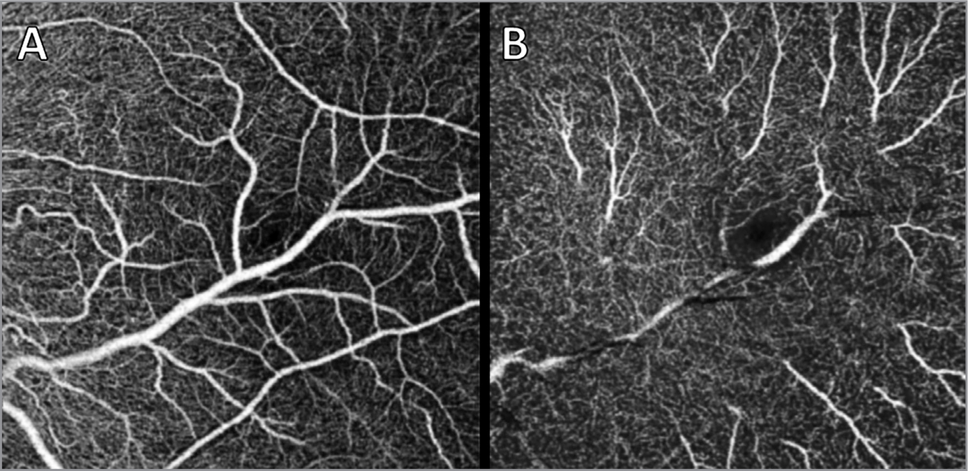 Swept-source optical coherence tomography angiography of the left eye showing an anomalous retinal macrovessel penetrating the superficial capillary plexus (A) and deep capillary plexus (B).