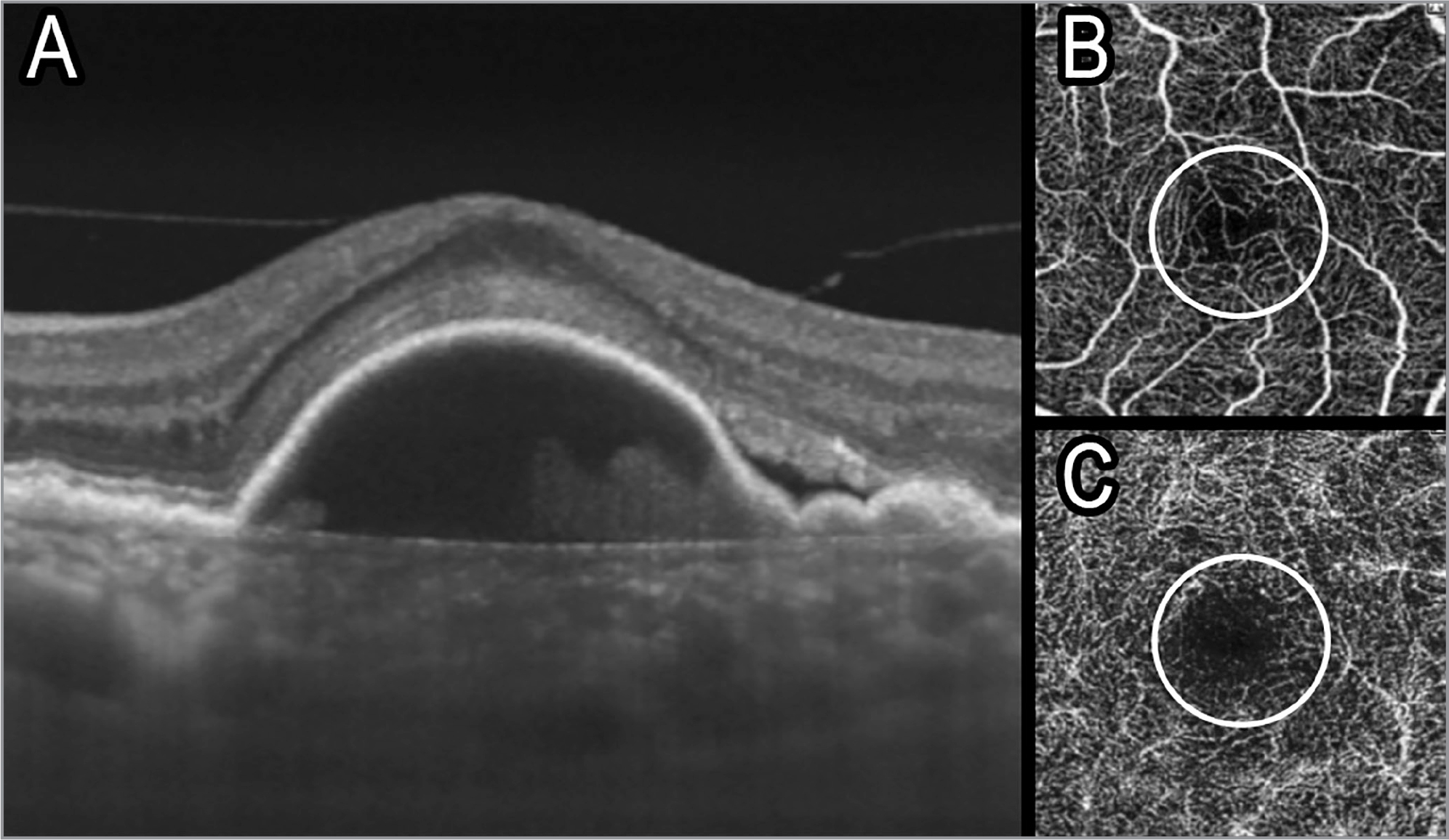 Swept-source optical coherence tomography of the left eye showing a pigment epithelial detachment (A). The superficial capillary plexus was vascularized (B), whereas the deep capillary plexus had an intact foveal avascular zone (C).