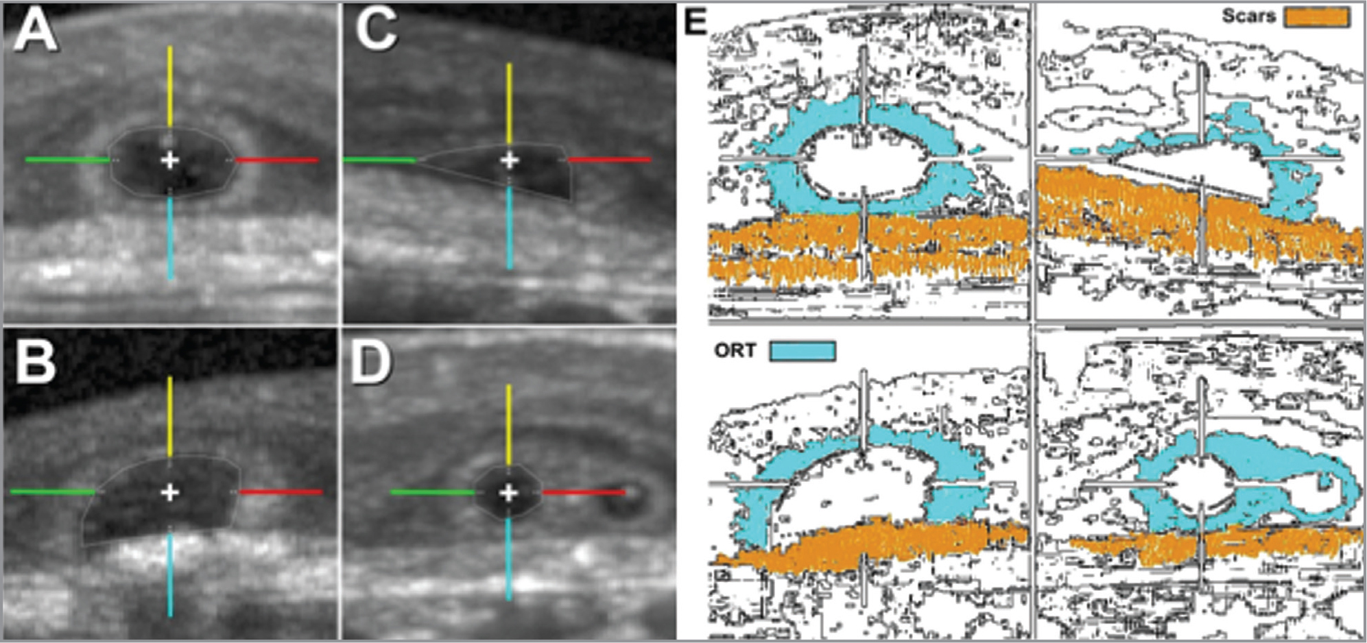 Outer retinal tubulation (ORT) types in cross-section for intensity analysis. (A) Closed ORT, (B) open ORT, (C) forming ORT, and (D) branching ORT. Hyperreflective ORT bands were sampled at 0° (red), 90° (yellow), 180° (green), and 270° (cyan). Raw (linear) spectral-domain optical coherence tomography intensity (ranging from 0 to 1 in a 32-bit image) by ORT type and angle was sampled at 5-μm steps from the inner aspect of ORT band along the colored lines. Lines of the cross in the centroid of ORT cross-sections are 20 μm long. (E) Schematic representation of different shapes of ORTs. Pictures modified from Litts et al.15 highlighting the ORTs structure and scars.