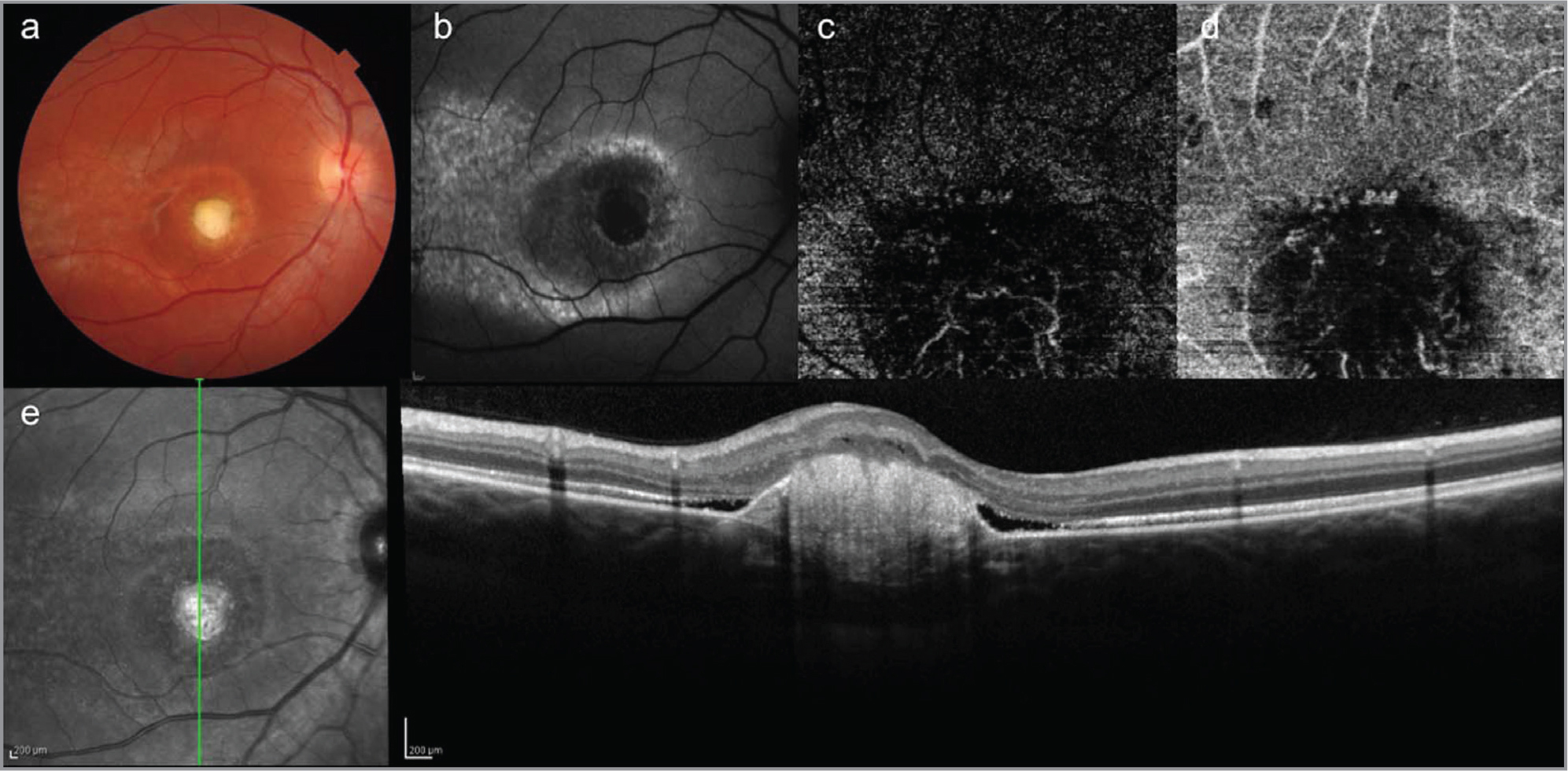 Multimodal imaging of autosomal recessive bestrophinopathy of the right eye after two anti-vascular endothelial growth factor injections. (a) Color fundus photograph shows presence of fibrotic macular scar tissue. (b) Fundus autofluorescence shows decreased autofluorescence in correspondence with the scar tissue. (c, d) Optical coherence tomography (OCT) angiography of the outer retina (c) and choriocapillaris (d) shows decreased vascular flow within the neovasculat network. (e) Spectral-domain OCT shows consolidation of the subretinal hyperreflective material.