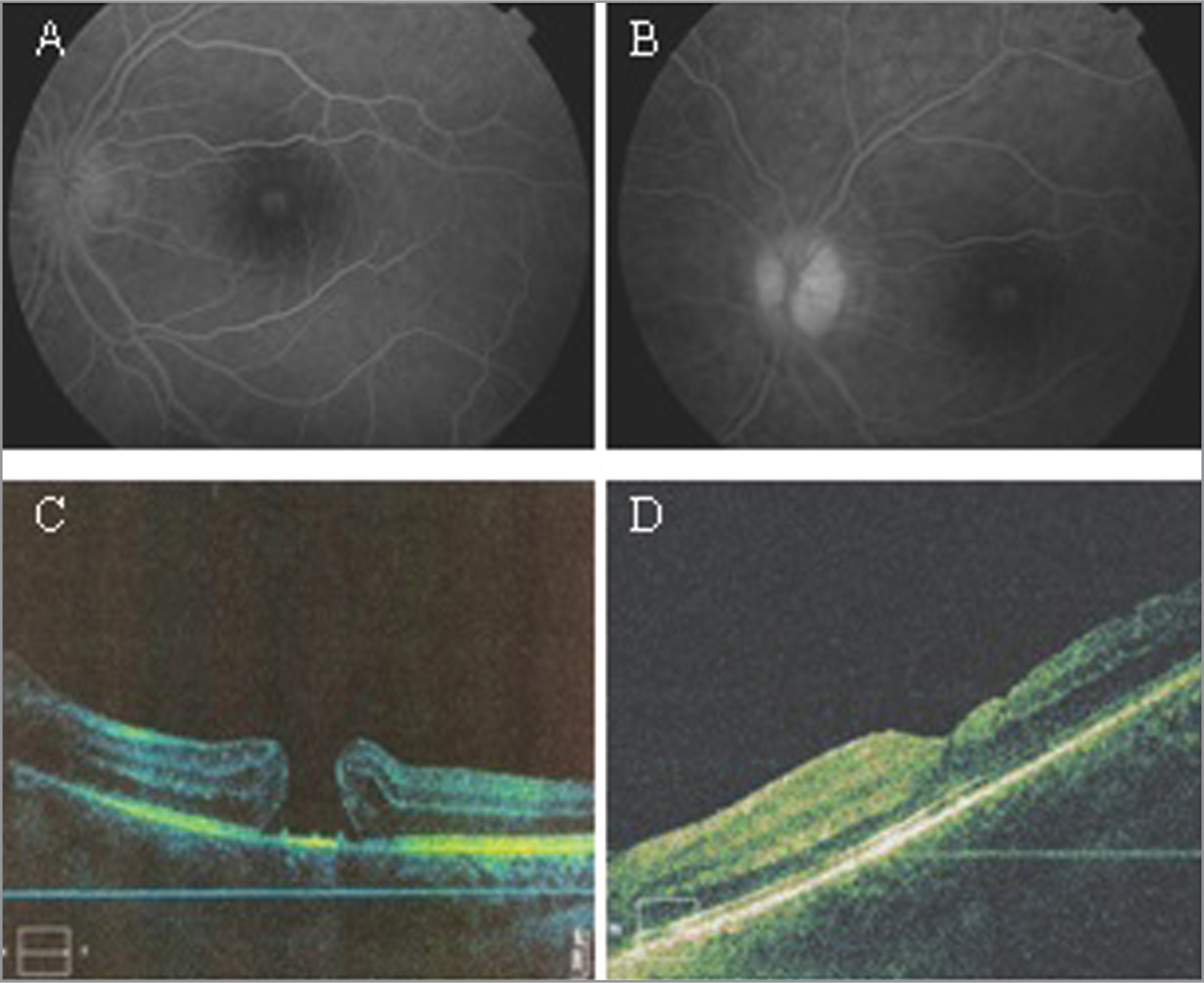 (A–D) Fluorescein angiography of the left eye (OS): A window defect in the foveal zone in early phase of the angiogram (A) that did not expand with time in the late phase (B). Late hyperfluorescence of optic nerve head (B). Macular optical coherence tomography OS: full-thickness macular hole (FTMH) (C), complete anatomic closure of FTMH after surgery (D).