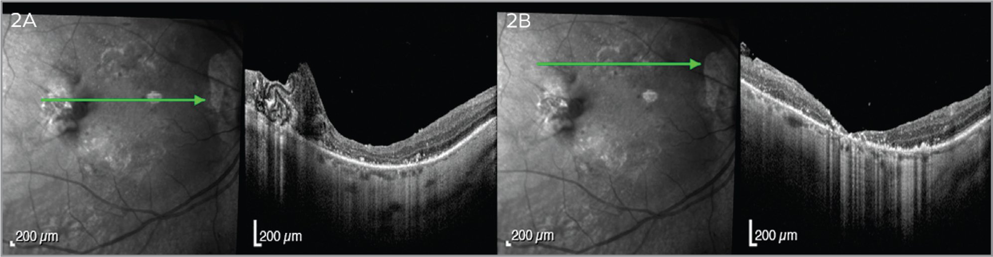 (A) Two months after autologous anterior lens capsule transplantation, the holes are closed and retina reattached, the largest hole is closed with a residual fragment of the capsule. (B) The superior holes are closed without remnants of the lens capsule flap.