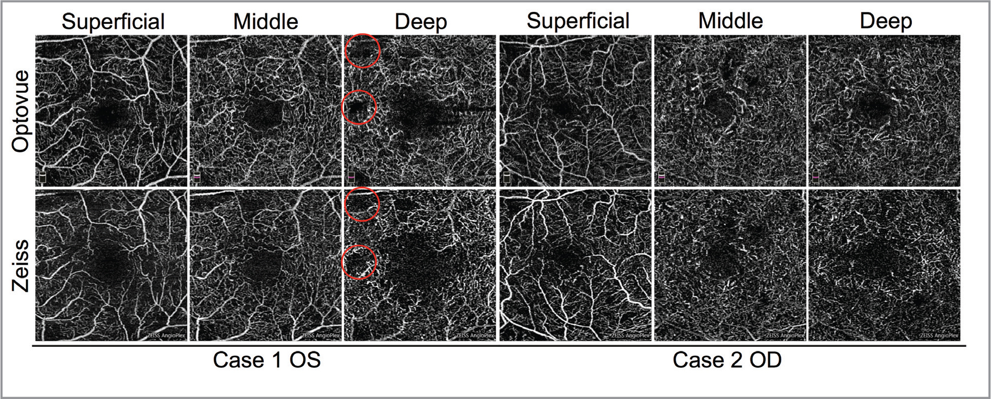 Recapitulation of optical coherence tomography angiography plexus layers. Representative images are shown depicting the qualitative reproduction of the superficial, middle, and deep capillary plexus layers on the Zeiss instrument. Red circles indicate areas of capillary dropout that are visualized using both devices.