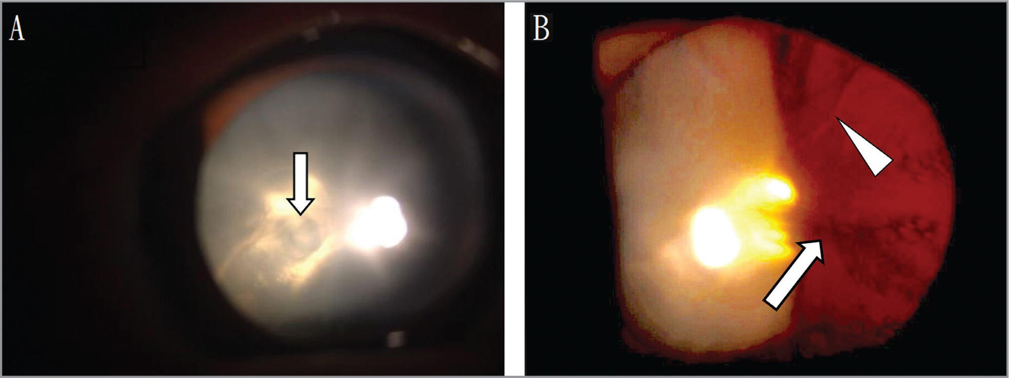 External photography and retro-illumination image of the right eye at the initial visit. (A) The punched-out cataract (arrow). (B) The tear in the posterior capsule (arrowhead) and cataract (arrow).