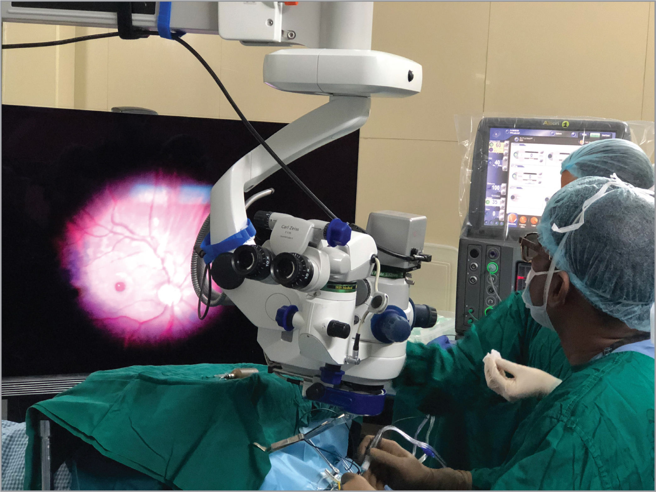 The surgeon (NB) wearing polarized three-dimensional glasses to operate on a patient with idiopathic full-thickness macular hole using the NGENUITY 3D Visualization System.