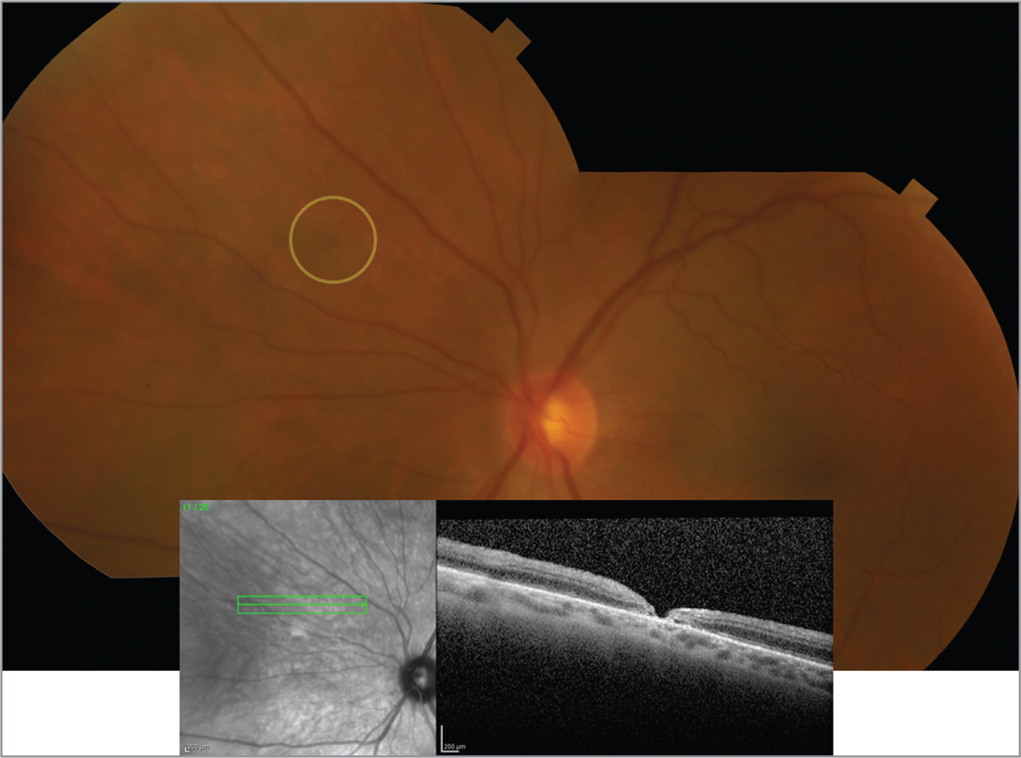 Color images of non-lasered retinotomies with accompanying optical coherence tomography images.