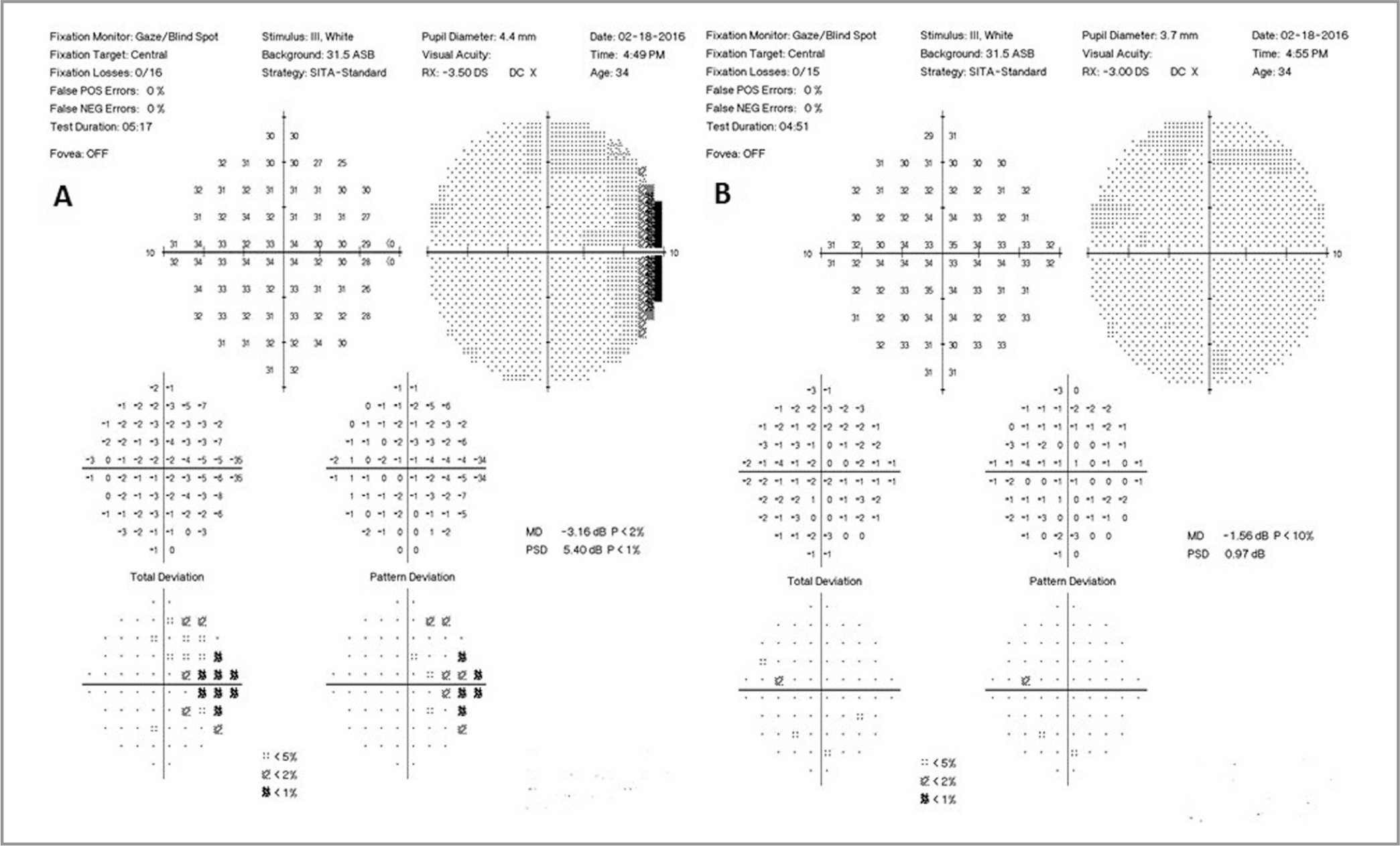 Seven months following the 2-year follow-up, the temporal visual field (VF) defect in the right eye persisted (A). The VF remained unchanged in the left eye (B).
