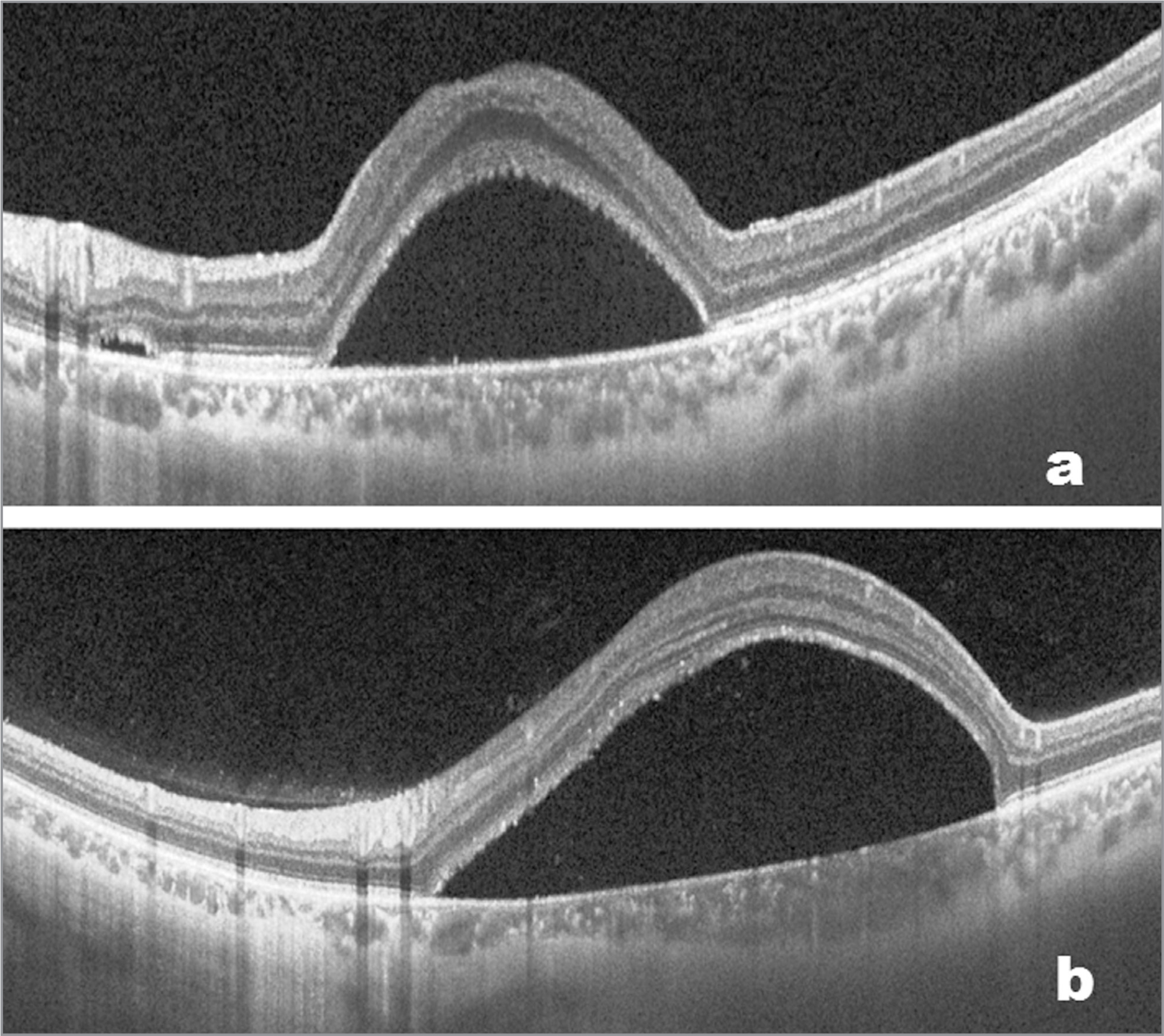 Preoperative (a) and postoperative (b) optical coherence tomography scan of a patient in group 2 showing a decrease but persistent neurosensory detachment at 12 months postsurgery with internal limiting membrane ILM peeling alone in group 2.