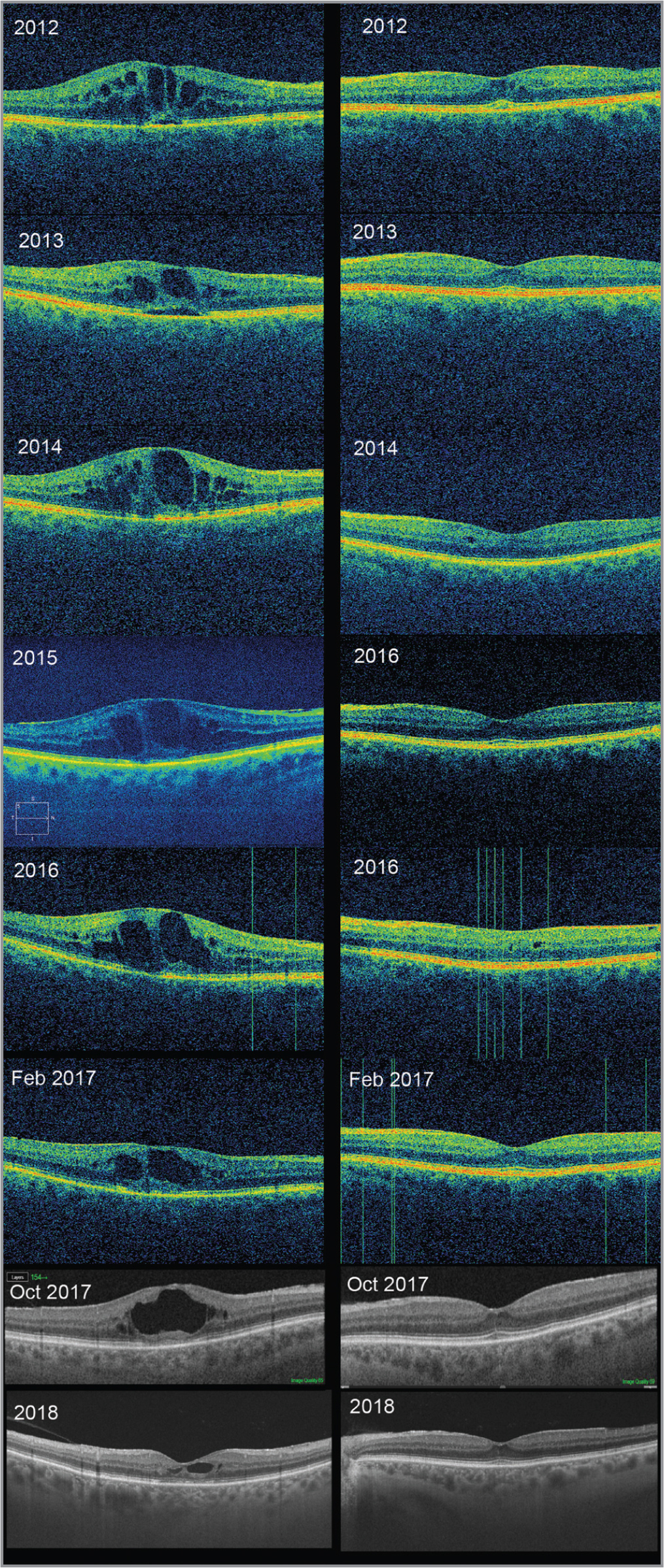 Optical coherence tomography (OCT) examination of the right eye (on the left) and of the left eye (on the right). In the right eye, horizontal OCT scan at baseline shows retinal thickening and cystoid spaces in the macular area. In particular, it is possible to discern foveal serous detachment with focal alteration of the ellipsoid zone. It is possible to see the atrophic evolution of the macular edema during the follow-up. In the left eye, OCT images show mild hyperreflective alteration at the fovea involving the outer retinal segments. Small intraretinal cysts are detectable. During the follow-up, the OCT images show the fluctuation of the intraretinal cysts.