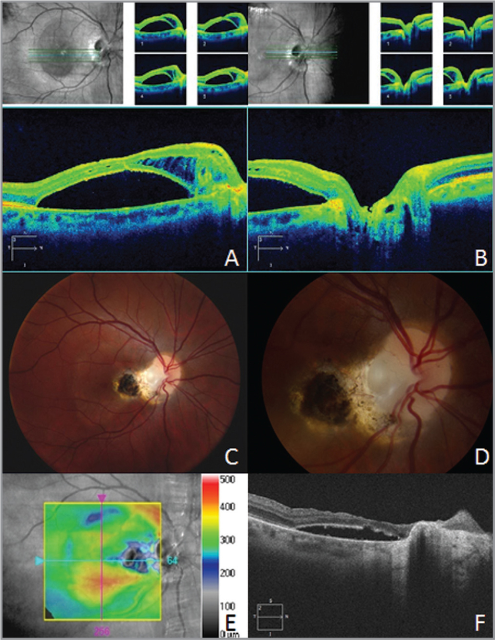 Multimodal imaging of the optic disc pit after removal of the glial plug. (A) Optical coherence tomography (OCT) of the retina and through the optic nerve (B) show persistent subretinal and intraretinal fluid. (C, D) Color fundus photographs show peripapillary and macular scarring around sites of photocoagulation and the macular retinotomy. (E, F) OCT of the macula shows improvement in subretinal fluid and atrophy after the second surgery.
