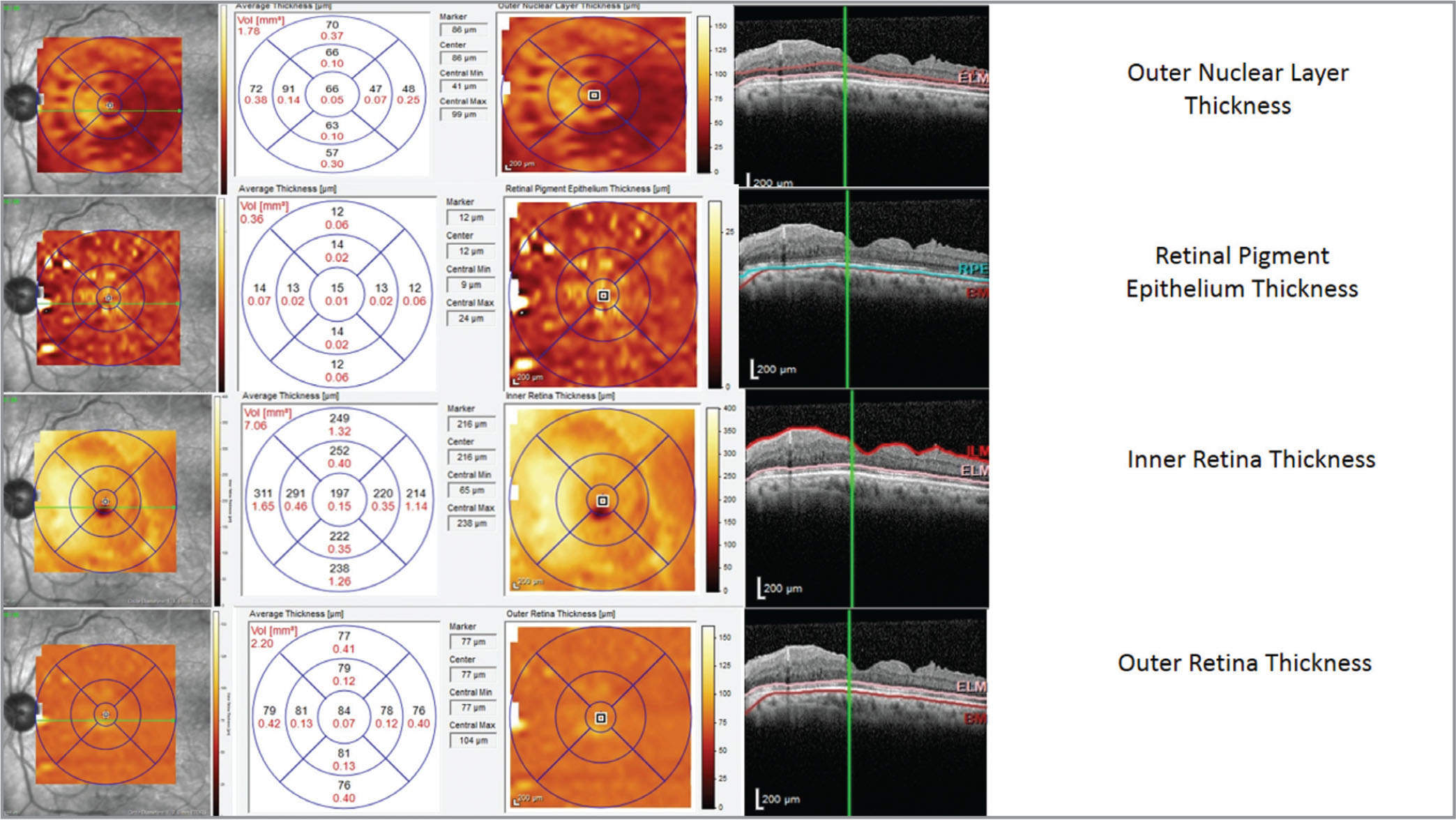 Outer nuclear layer segmentation, as well as retina pigment epithelium, inner retina, and outer retina thicknesses. (A case was from the silicone oil group and spectral-domain optical coherence tomography segmentation at 6 months postoperatively.)