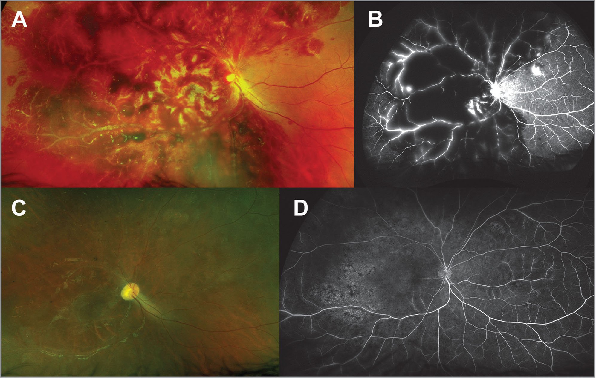 (A) Color fundus photograph of the right eye showing extensive retinal hemorrhages and perivascular infiltration. (B) Right eye fundus fluorescein angiography (FFA) showing blocked fluorescence, vessel wall staining, and retinal neovascularization nasal to the optic nerve. (C) Color fundus photograph after 1 month shows significantly fewer retinal hemorrhages and improved perivascular infiltration. (D) Right eye FFA shows resolved perivascular staining and retinal neovascularization.