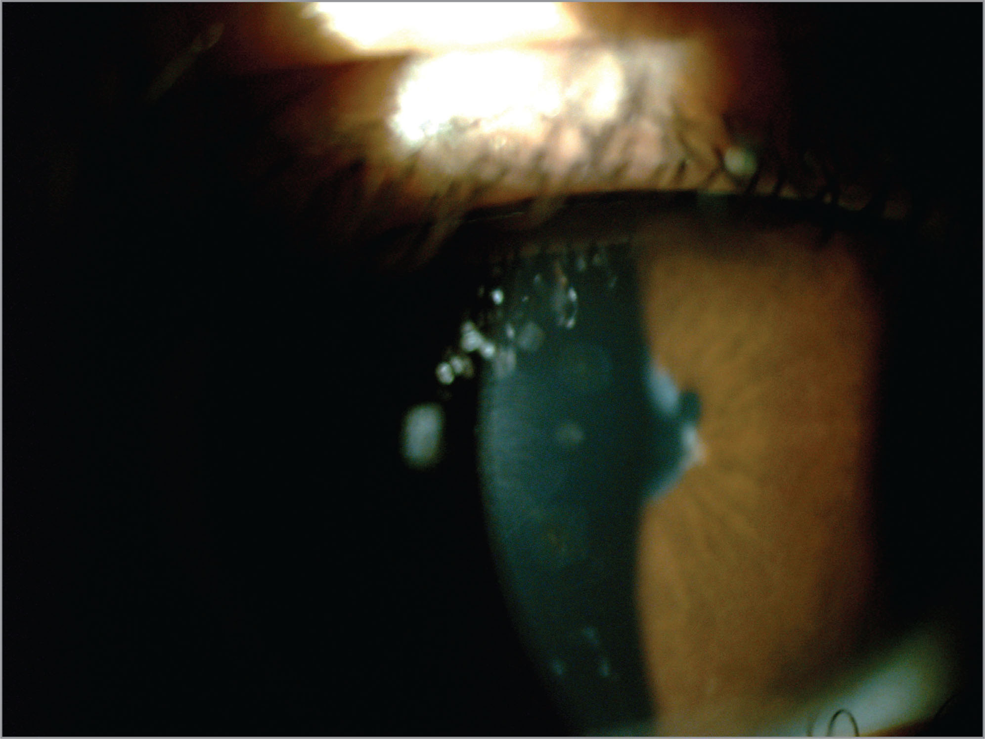 Case 3. Anterior biomicroscopy image of an eye with uveitis in Blau-Jabs syndrome. Nummular corneal opacities and posterior synechiae are seen.