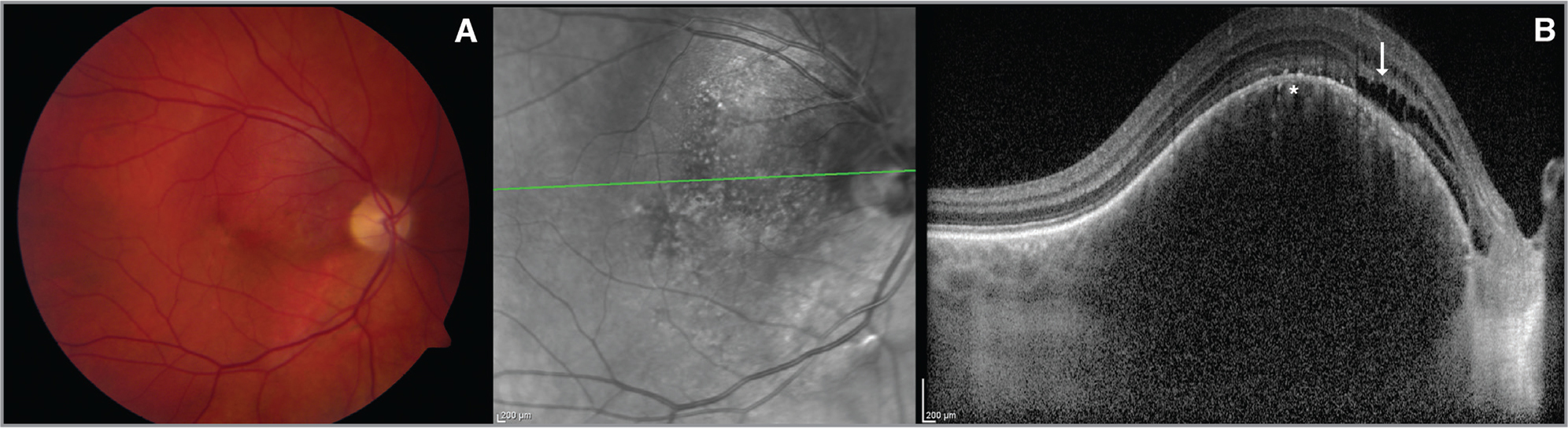 (A) A choroidal hemangioma on the macula. (B) On enhanced depth imaging optical coherence tomography, normal-looking honeycomb-like choriocapillaris (asterisk) with overlying retinal pigment epithelium, outer photoreceptor, and plexiform layer abnormalities are visible (arrow).