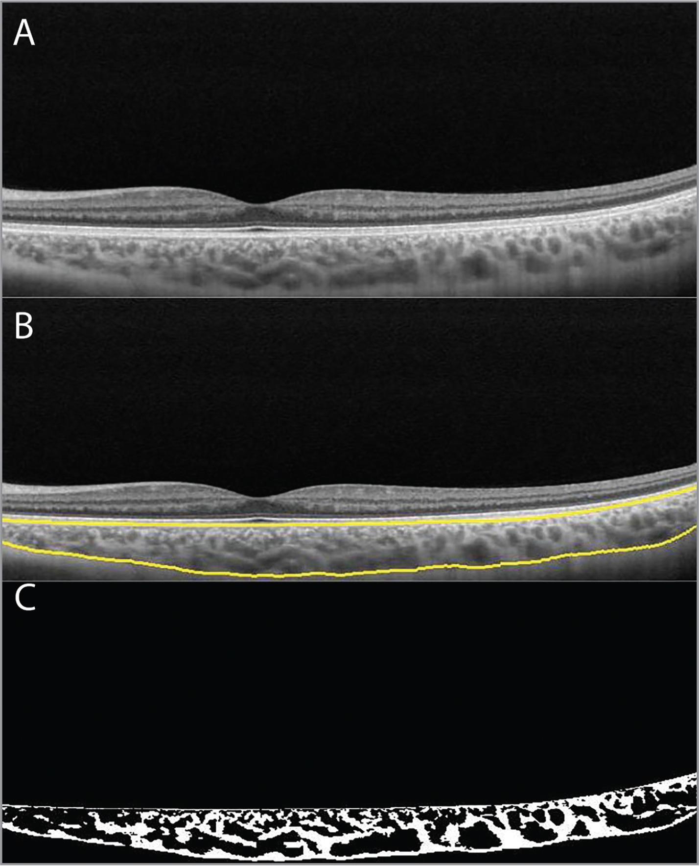 (A) Representative swept-source scan passing through fovea of a patient with retinitis pigmentosa. (B) The automated choroidal segmentation. (C) The binarized image of the scan.