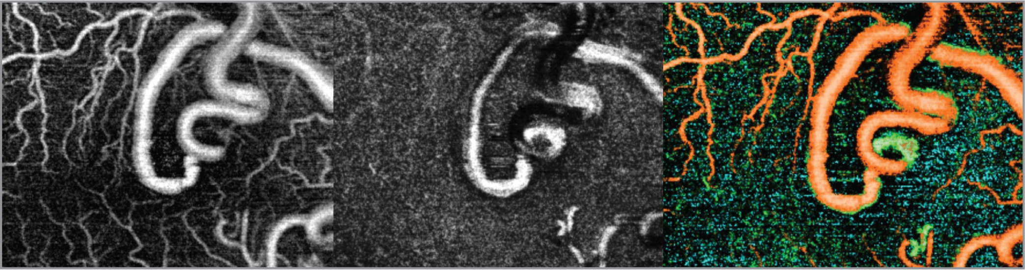 (Left) The anomalous vessels are seen on the superficial retinal vascular segment on optical coherence tomography angiography (OCTA). Foveal avascular zone is not well-defined. The adjacent normal superficial vessels appeared a bit displaced. Capillary nonperfusion areas are not seen. (Middle) The large anomalous arteriovenous malformation vessels are also visualized in deeper nonvascular segments of the outer retina on OCTA. (Right) Composite color-coded OCTA map of retinal vasculature showing the vasculature at various depths in different colors with orange representing most superficial plexus, green being at the level of the deep plexus and light blue at the level of the outer retina.