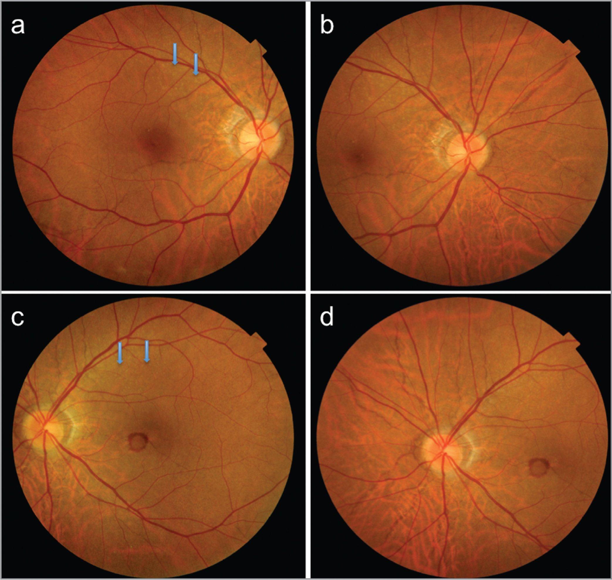 Color Fundus Photographs Of The Right Eye A And Left C