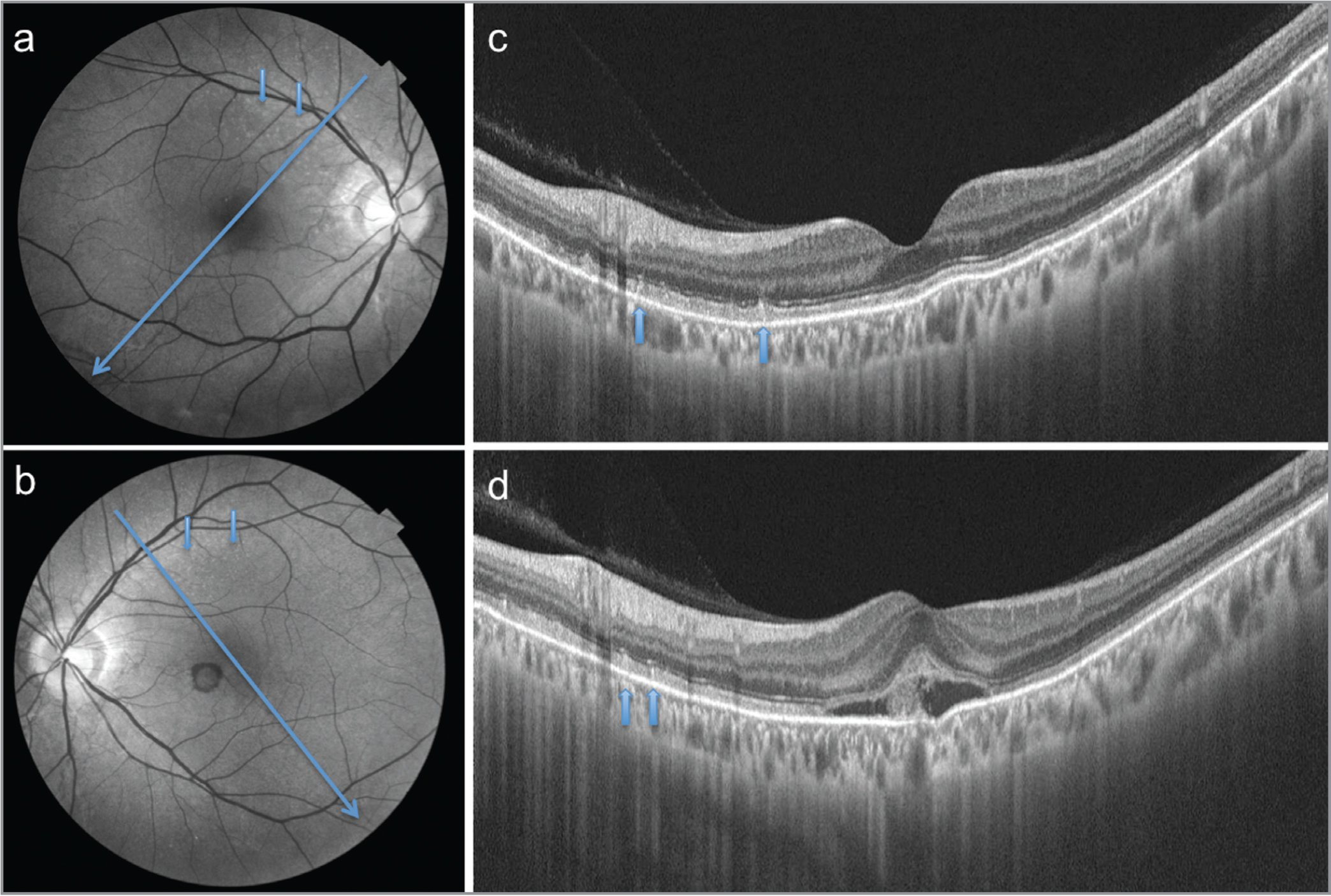 Red-free photographs of the same patient of the right (a) and the left (b) eyes showing reticular pseudodrusen (RPD) as bright dots (small arrows). Large arrows indicate position of optical coherence tomography (OCT) scans. Swept-source OCT scans of the right (c) and the left (d) eyes show RPD (arrows) as triangular depositions above the retinal pigment epithelium. The left eye has a choroidal neovascularization at the fovea.