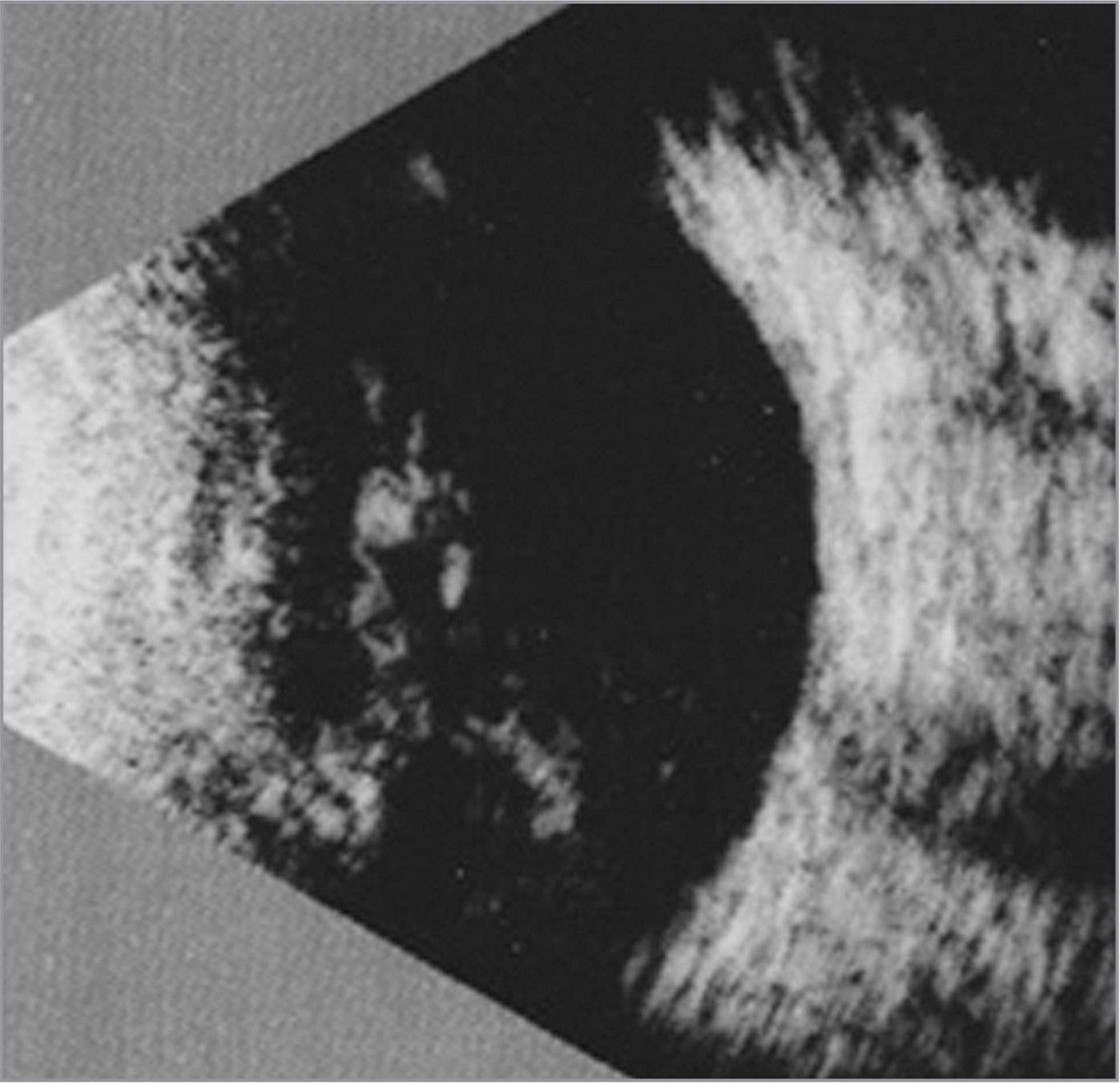 Ultrasound echography photograph of the patient's right eye obtained at the initial examination. Vitreous hemorrhage was observed; however, no obvious retinal detachment was detected.