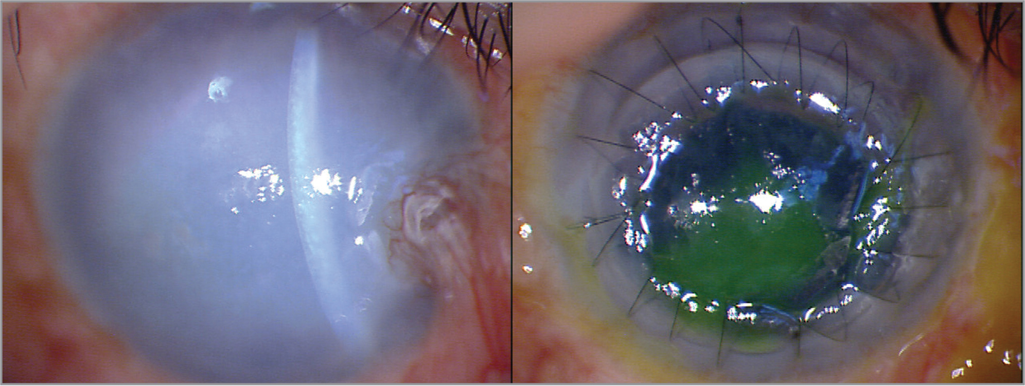 Slit-lamp photograph of the patient's right eye before (right) and after (left) full-thickness keratopathy. At 1-year post-injury, full-thickness corneal transplantation, vitreous surgery using an Eckard temporary keratoprosthesis, and silicone oil removal were simultaneously performed due to the progression of bullous keratopathy. Post-surgery corneal transparency was improved.