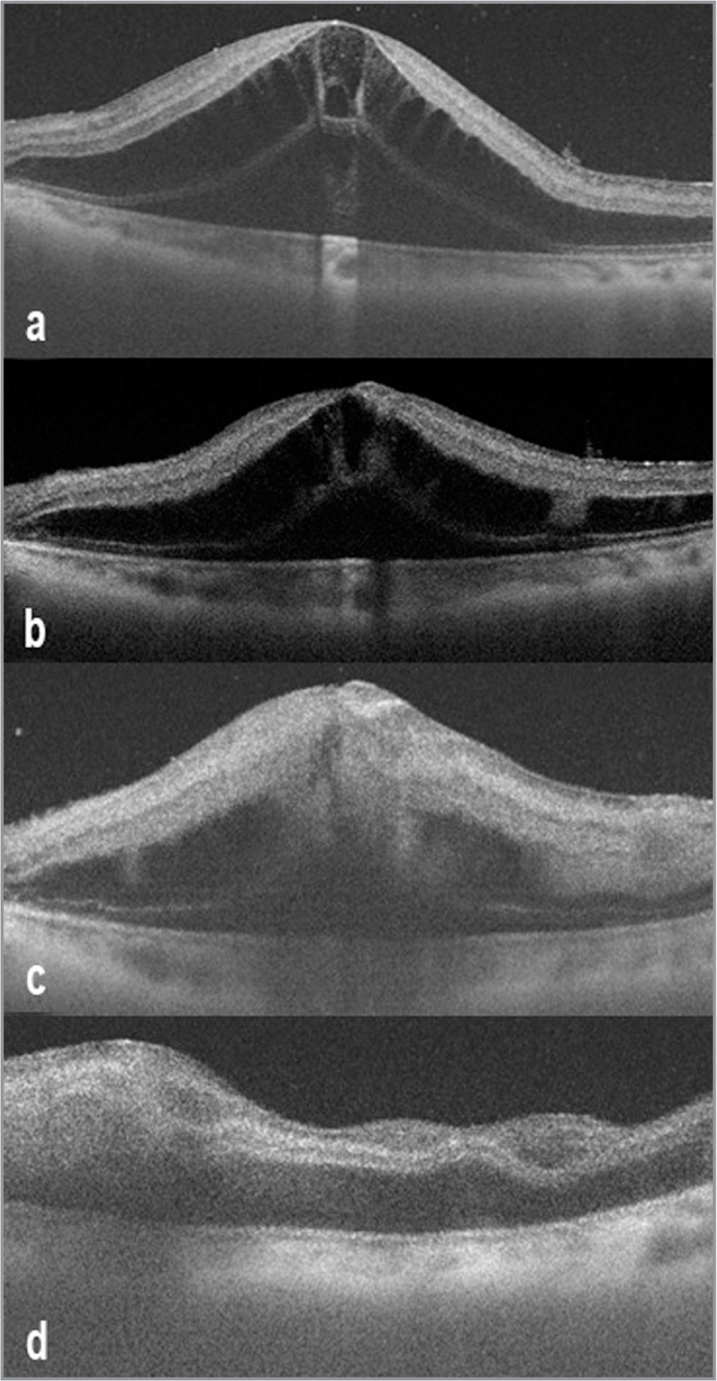 Transverse optical coherence tomography scans through the macula on day 1 (a) show great elevation of neurosensory retina, large cystoid spaces in the outer nuclear layer, and preserved integrity of inner retinal layers. Progressive decrease in detachment height and increased disorganization of the inner retinal layers are evident across day 2 (b), day 4 (c), and at 2 weeks (d).