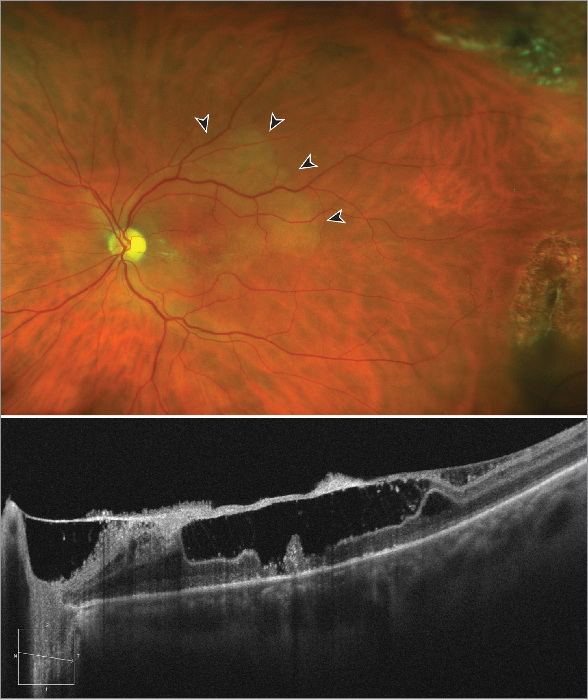 (Top) Widefield colored retinography of the patient. The edema of the internal retinal layers is marked with arrows. At the temporal midperiphery, scars of laser photocoagulation blocking a retinal tear can be found. Note the sectorial pallor of the optic disc. (Bottom) Optical coherence tomography showing the central neurosensory retina destruction.
