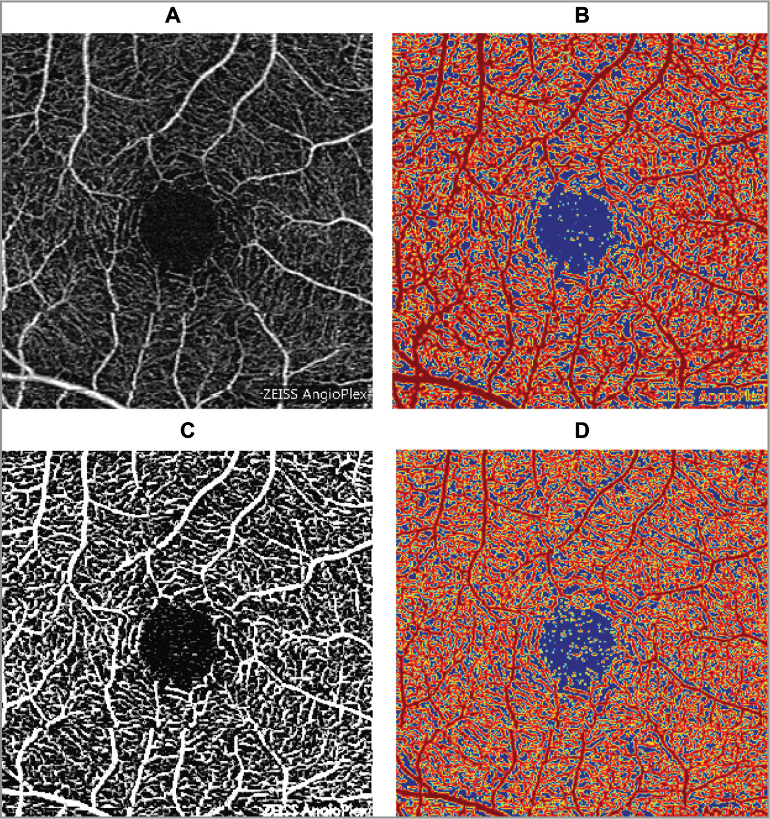 Angioplex optical coherence tomography image of the superficial plexus before (A) and after (B) the application of Frangi filter, respectively. Corresponding contour maps (C, D).