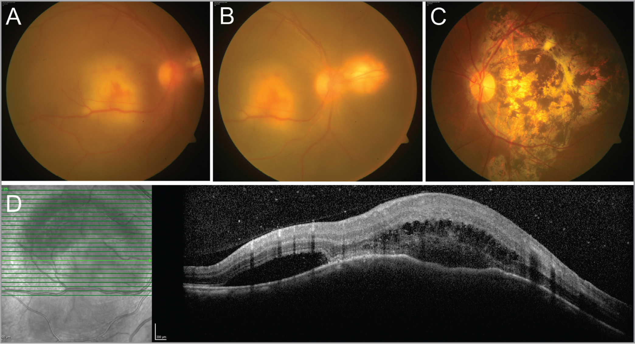 (A) Fundus photograph of the right eye shows presence of vitritis with a large, yellowish, raised subretinal lesion with overlying retinal hemorrhages and surrounding exudative retinal detachment suggestive of a vascularized choroidal granuloma. (B) Fundus photograph of the nasal field shows the presence of a healed chorioretinal lesion with well-defined margins and no overlying fluid. (C) Fundus photograph of the left eye shows a healed pigmented chorioretinal scar involving the macula. (D) Optical coherence tomography line scan passing through the subretinal lesion in the right eye shows dome-shaped elevations of the retinal pigment epithelium with presence of subretinal fluid and hyperreflective deposits suggestive of fibrin. There is hyporeflectivity of the underlying choroid.